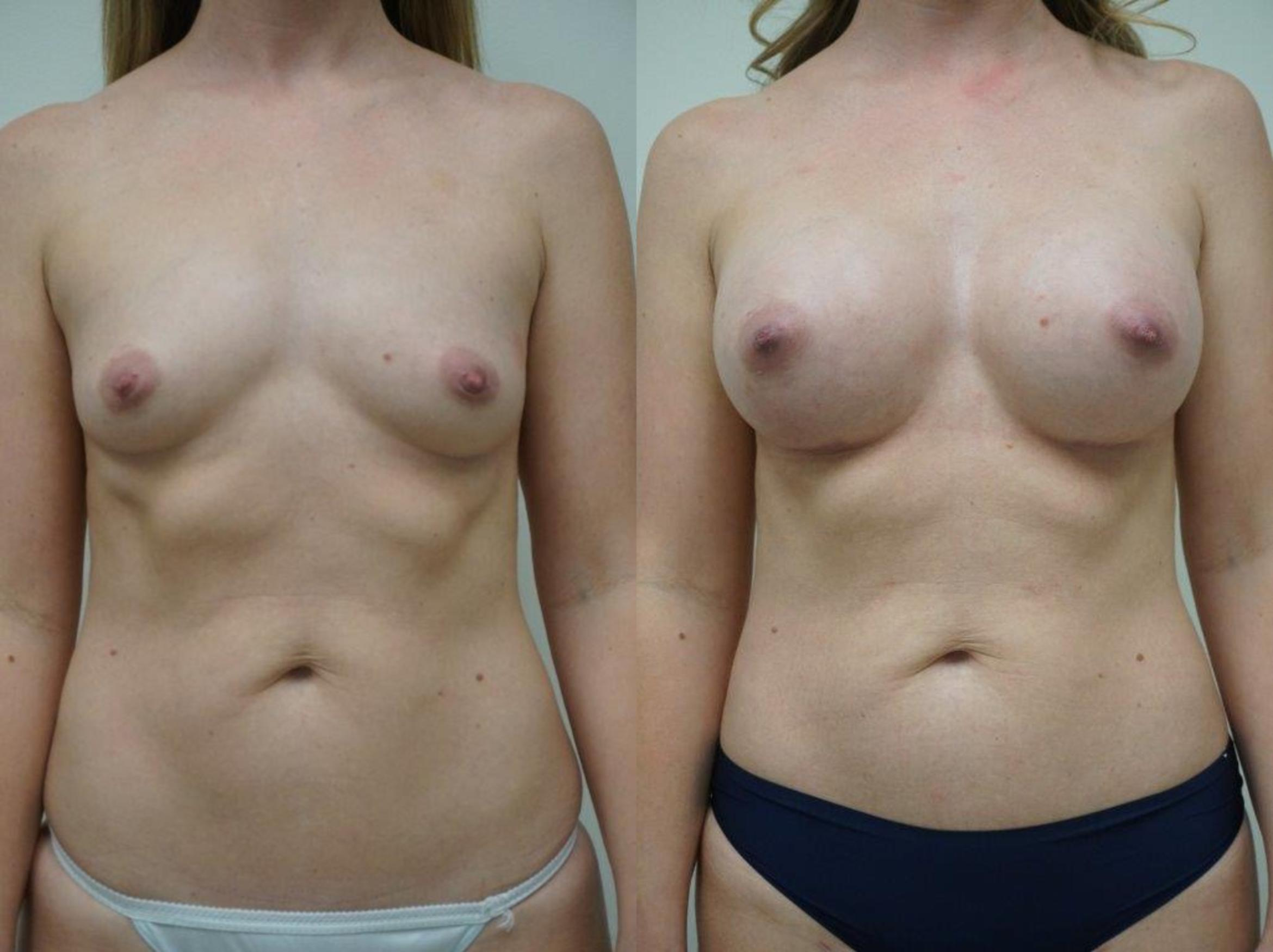 Breast Augmentation Case 103 Before & After View #1 | Gilbert, AZ | Dr. Josh Olson: Advanced Plastic Surgery Institute