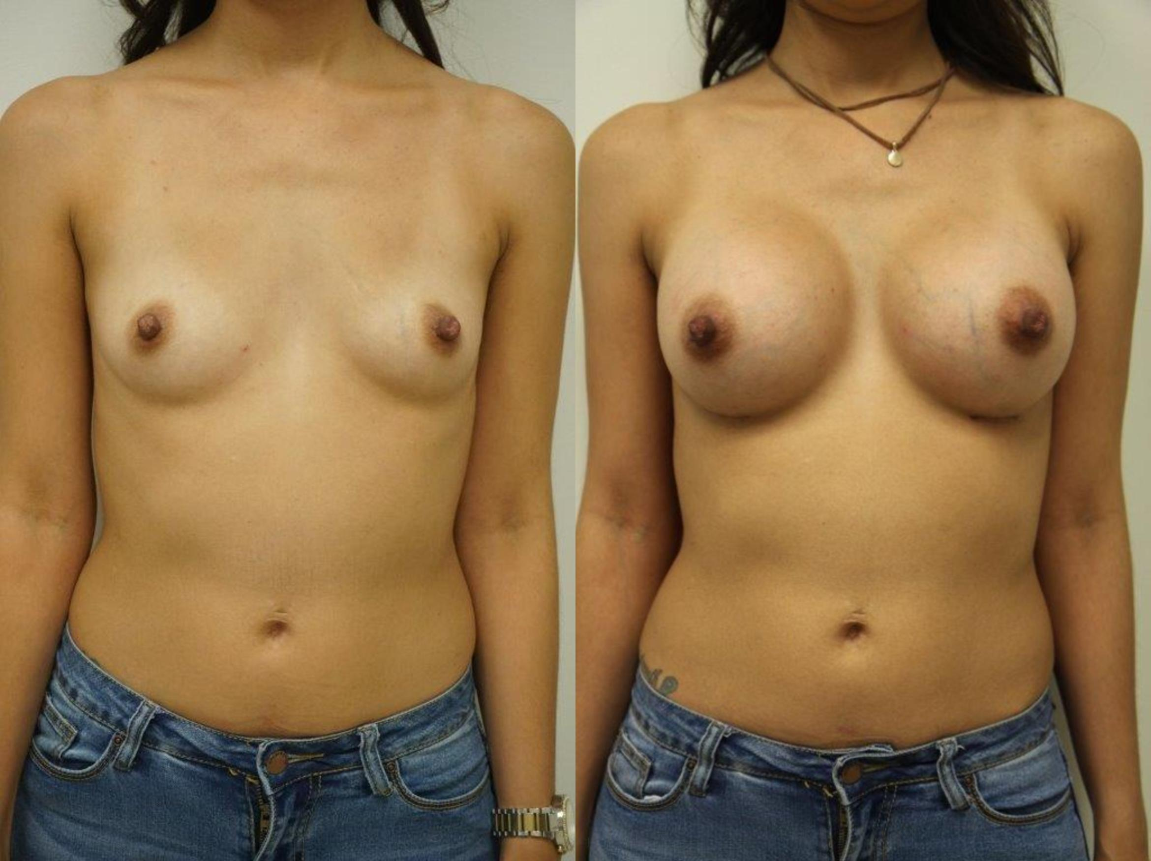 Breast Augmentation Case 127 Before & After View #1 | Gilbert, AZ | Dr. Josh Olson: Advanced Plastic Surgery Institute