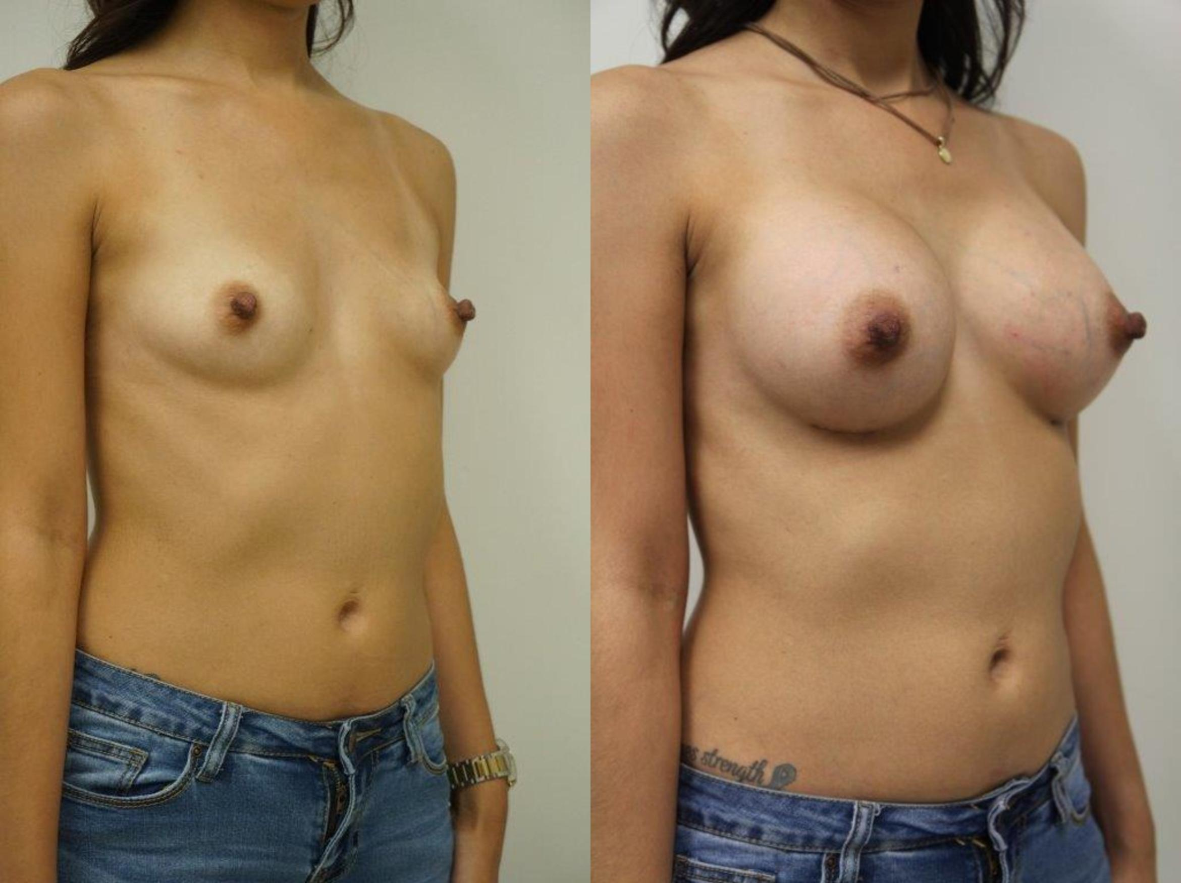 Breast Augmentation Case 127 Before & After View #2 | Gilbert, AZ | Dr. Josh Olson: Advanced Plastic Surgery Institute
