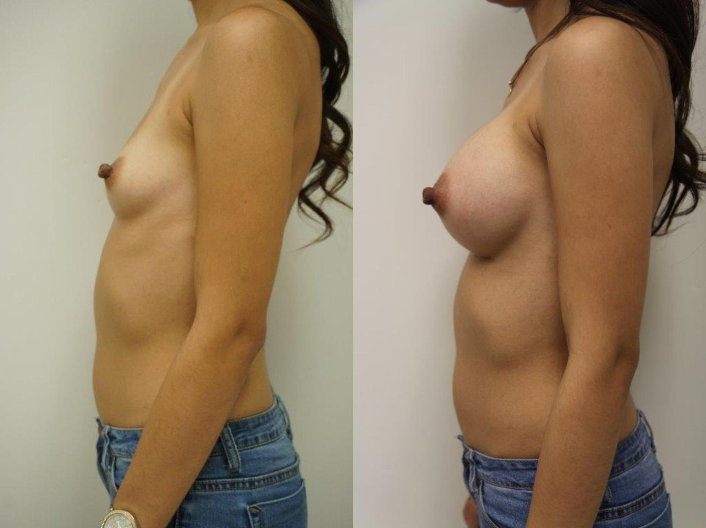 Breast Augmentation Case 127 Before & After View #3 | Gilbert, AZ | Dr. Josh Olson: Advanced Plastic Surgery Institute