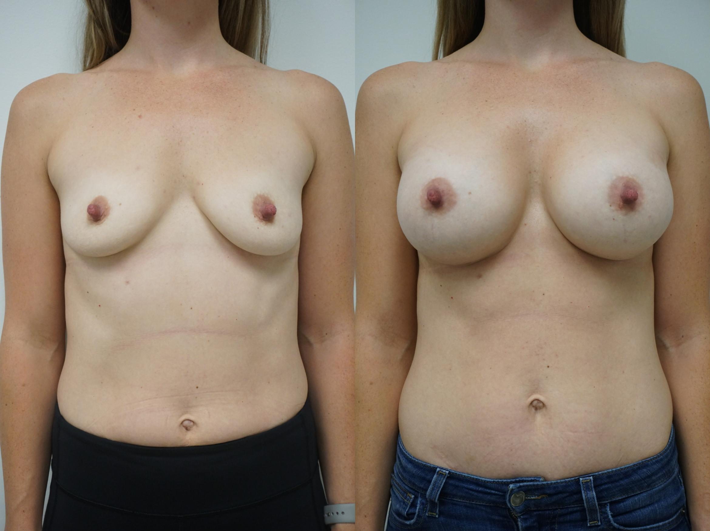 Breast Augmentation Case 130 Before & After View #1 | Gilbert, AZ | Dr. Josh Olson: Advanced Plastic Surgery Institute