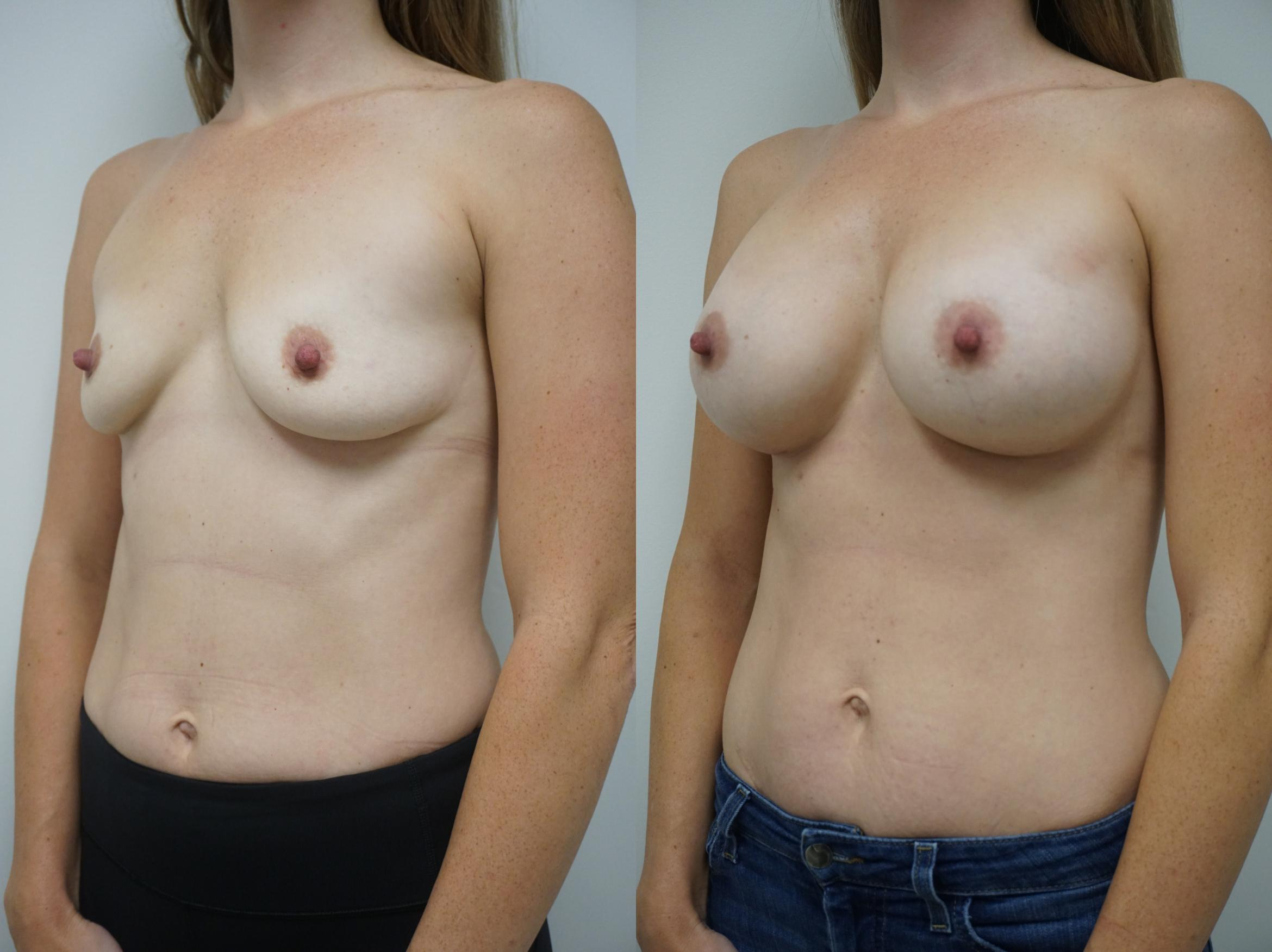 Breast Augmentation Case 130 Before & After View #2 | Gilbert, AZ | Dr. Josh Olson: Advanced Plastic Surgery Institute