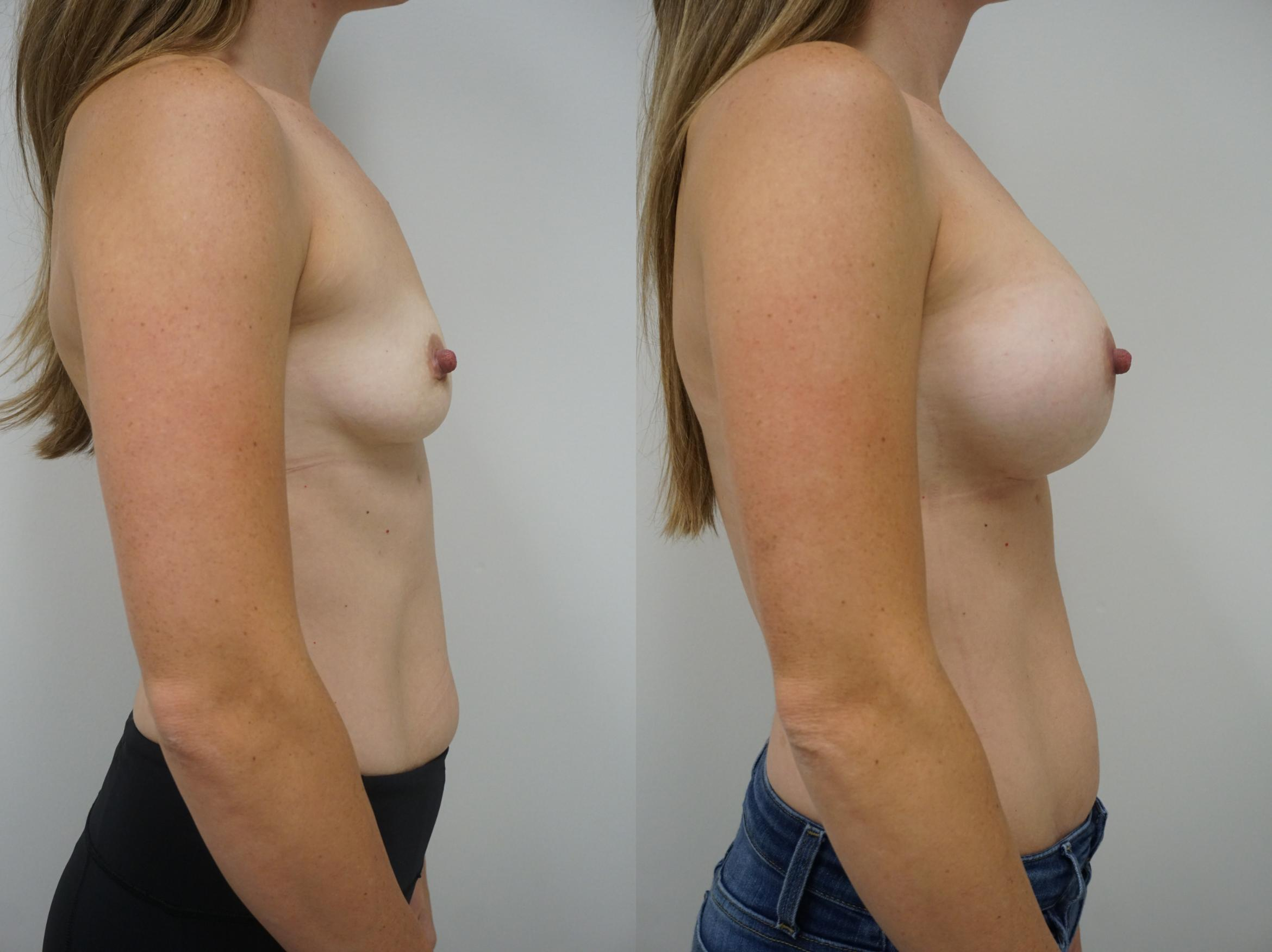 Breast Augmentation Case 130 Before & After View #3 | Gilbert, AZ | Dr. Josh Olson: Advanced Plastic Surgery Institute