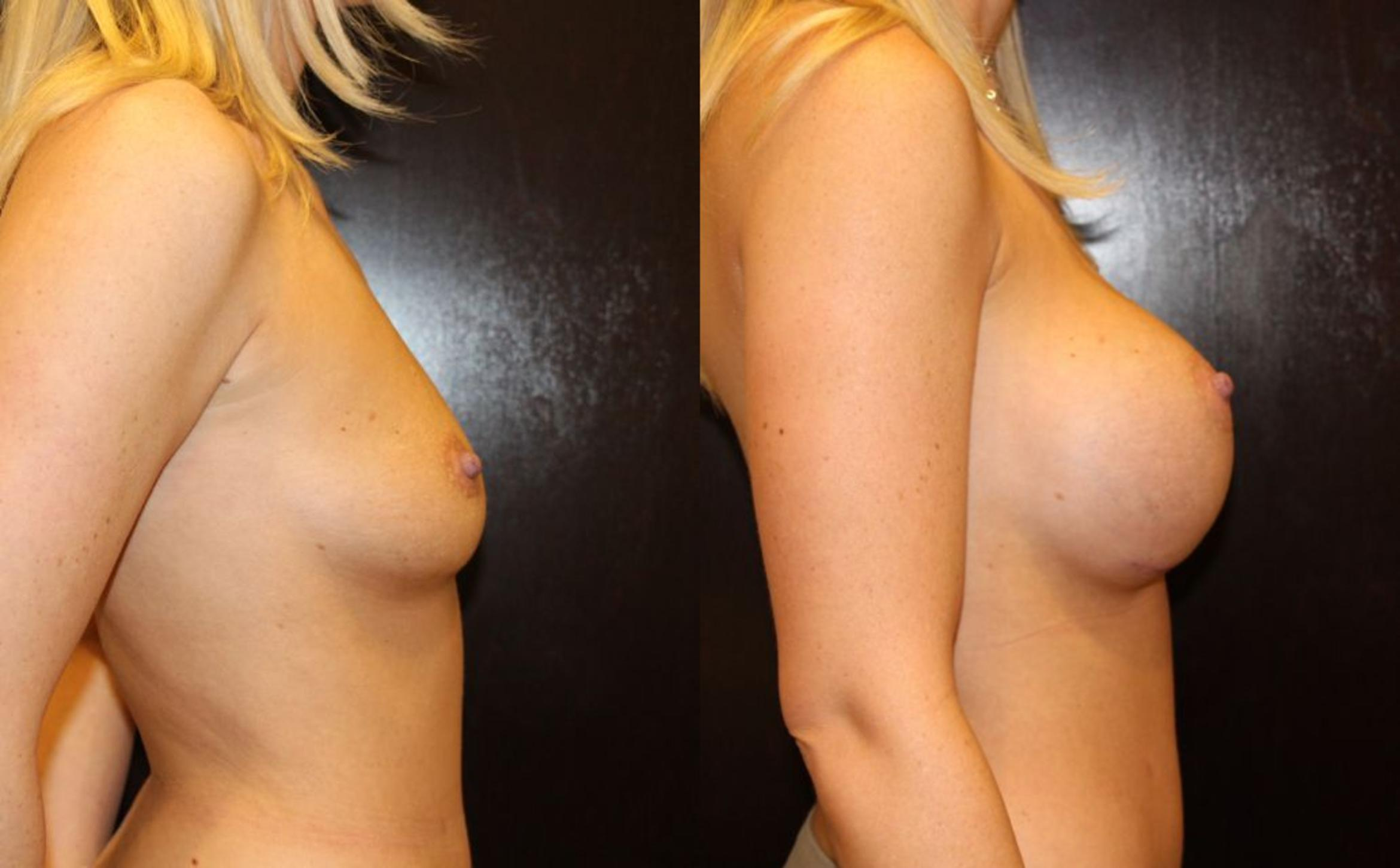 Breast Augmentation Case 14 Before & After View #2 | Gilbert, AZ | Dr. Josh Olson: Advanced Plastic Surgery Institute