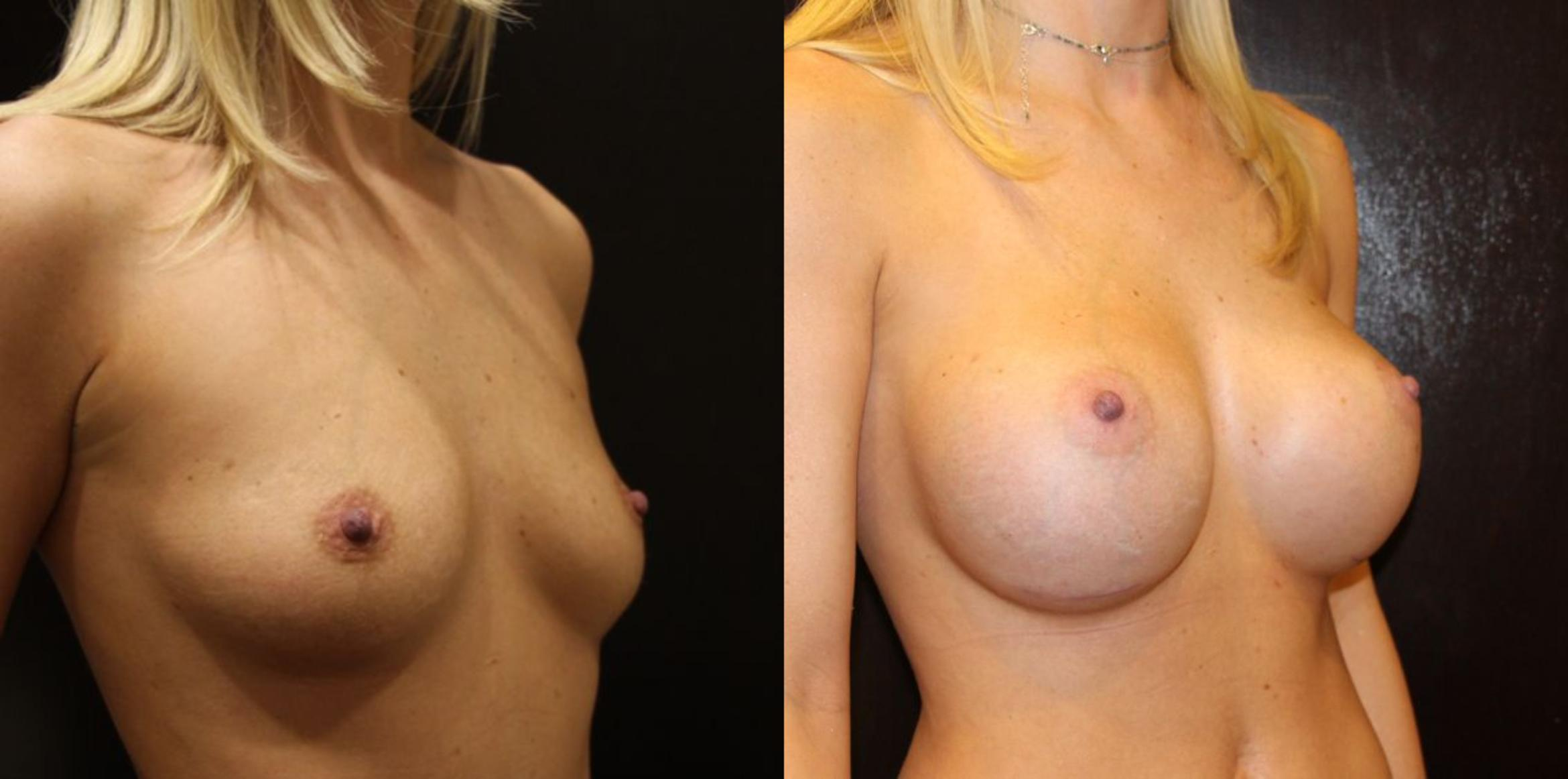 Breast Augmentation Case 14 Before & After View #3 | Gilbert, AZ | Dr. Josh Olson: Advanced Plastic Surgery Institute