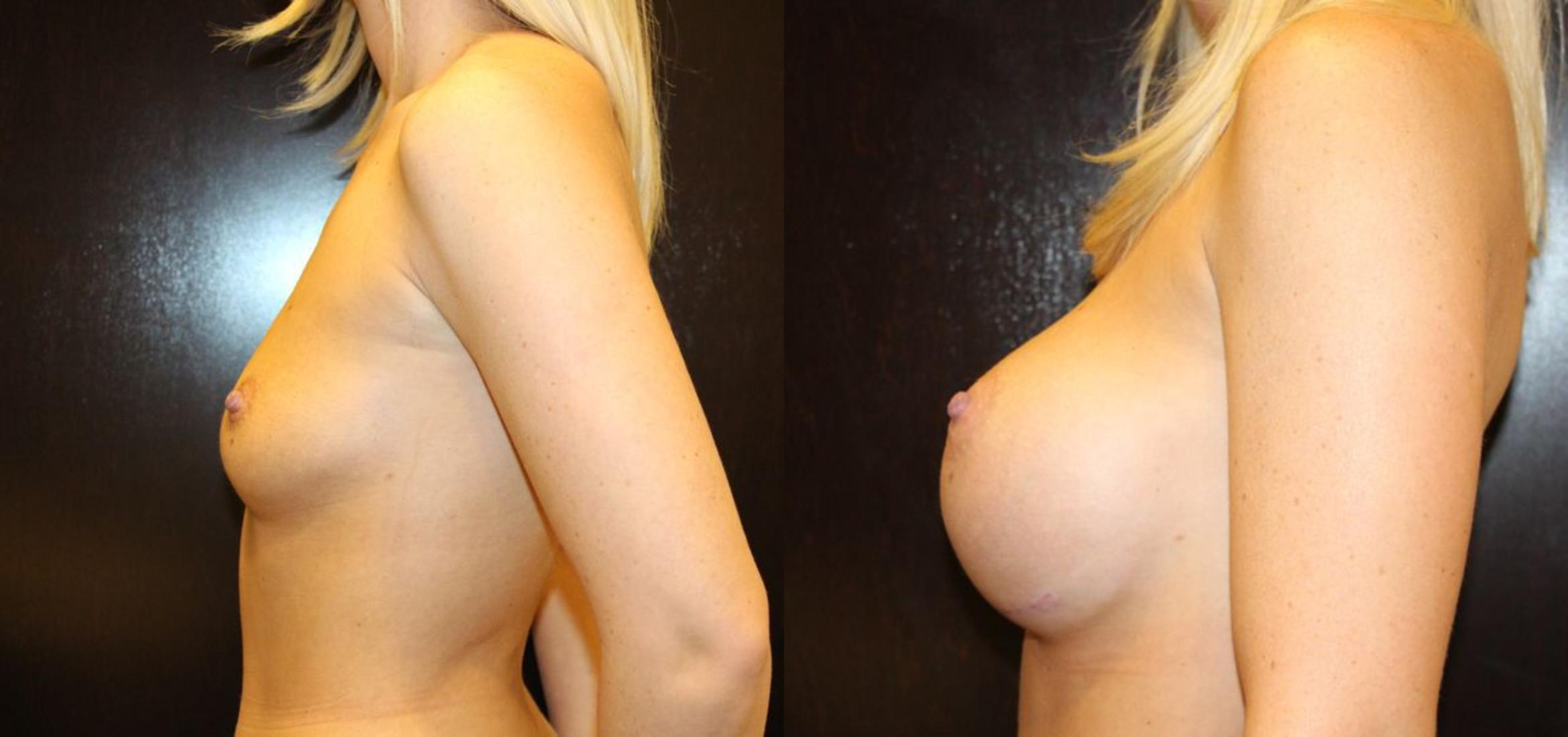 Breast Augmentation Case 14 Before & After View #4 | Gilbert, AZ | Dr. Josh Olson: Advanced Plastic Surgery Institute