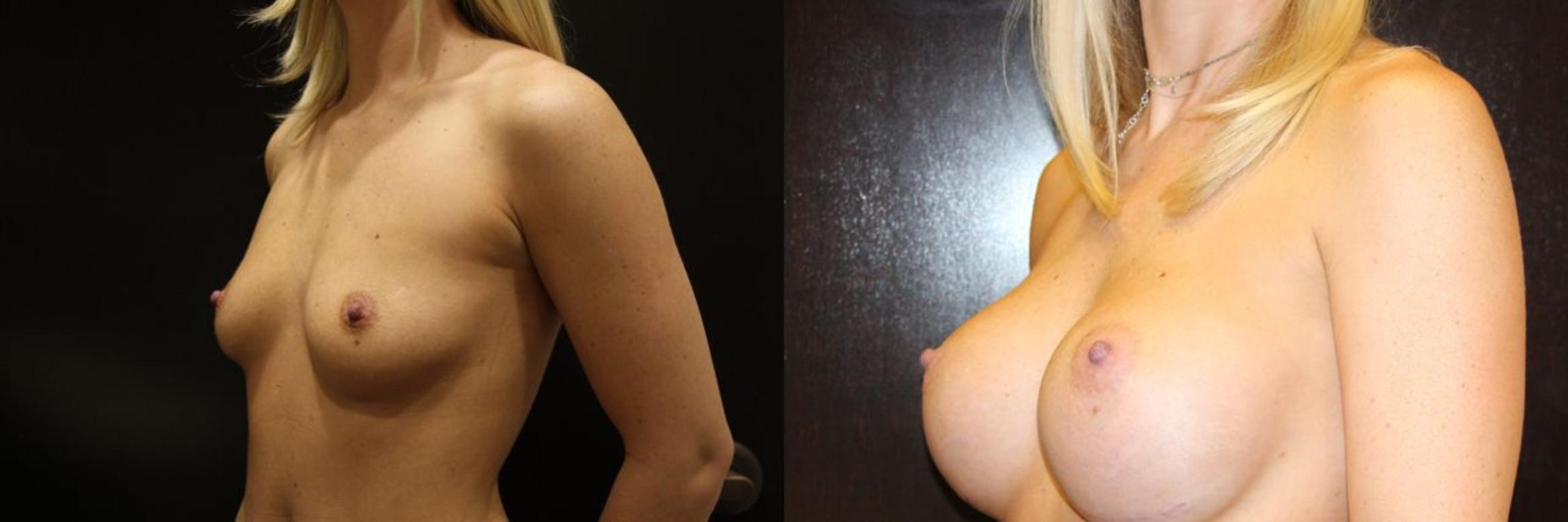 Breast Augmentation Case 14 Before & After View #5 | Gilbert, AZ | Dr. Josh Olson: Advanced Plastic Surgery Institute