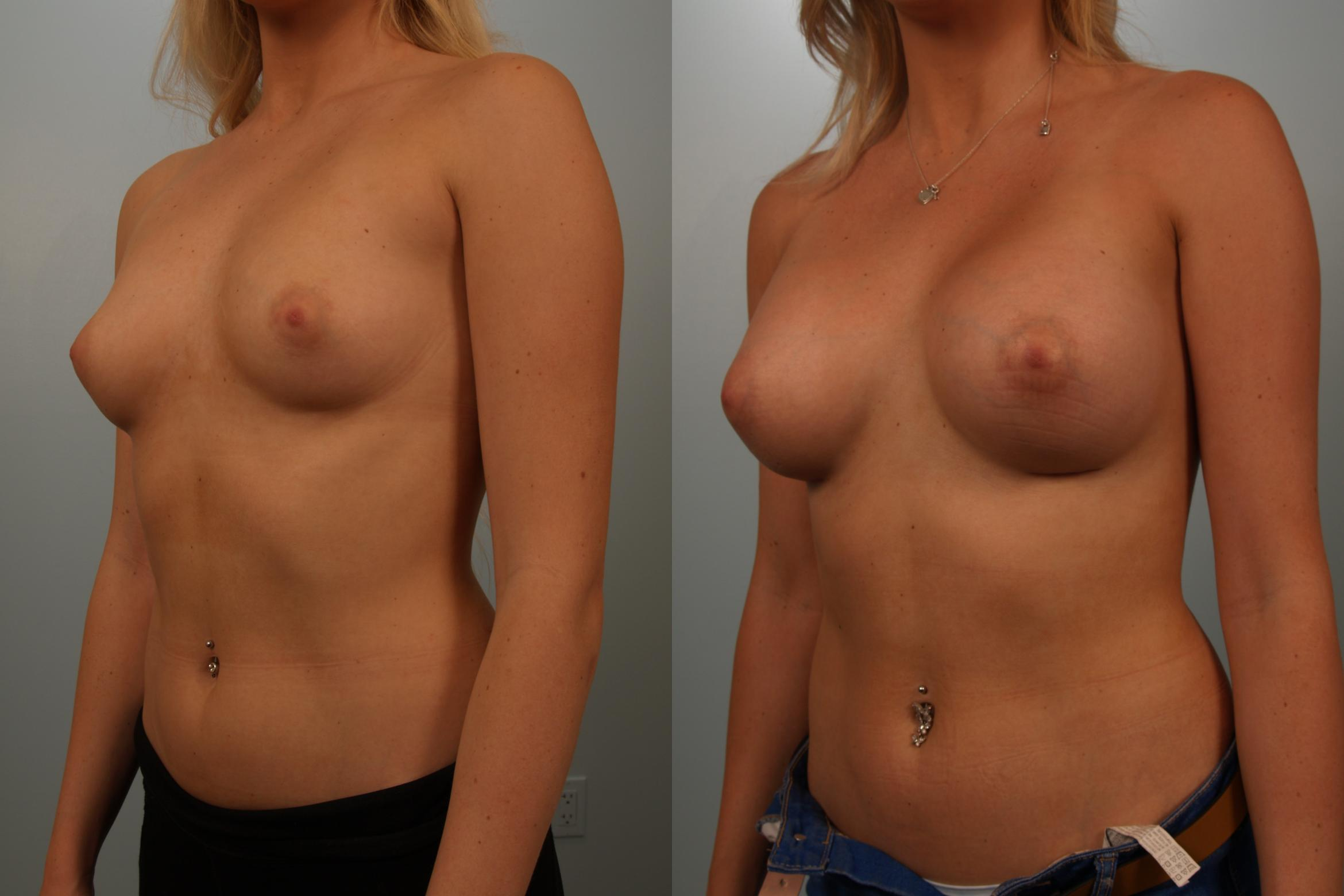 Breast Augmentation Case 151 Before & After View #1 | Gilbert, AZ | Dr. Josh Olson: Advanced Plastic Surgery Institute