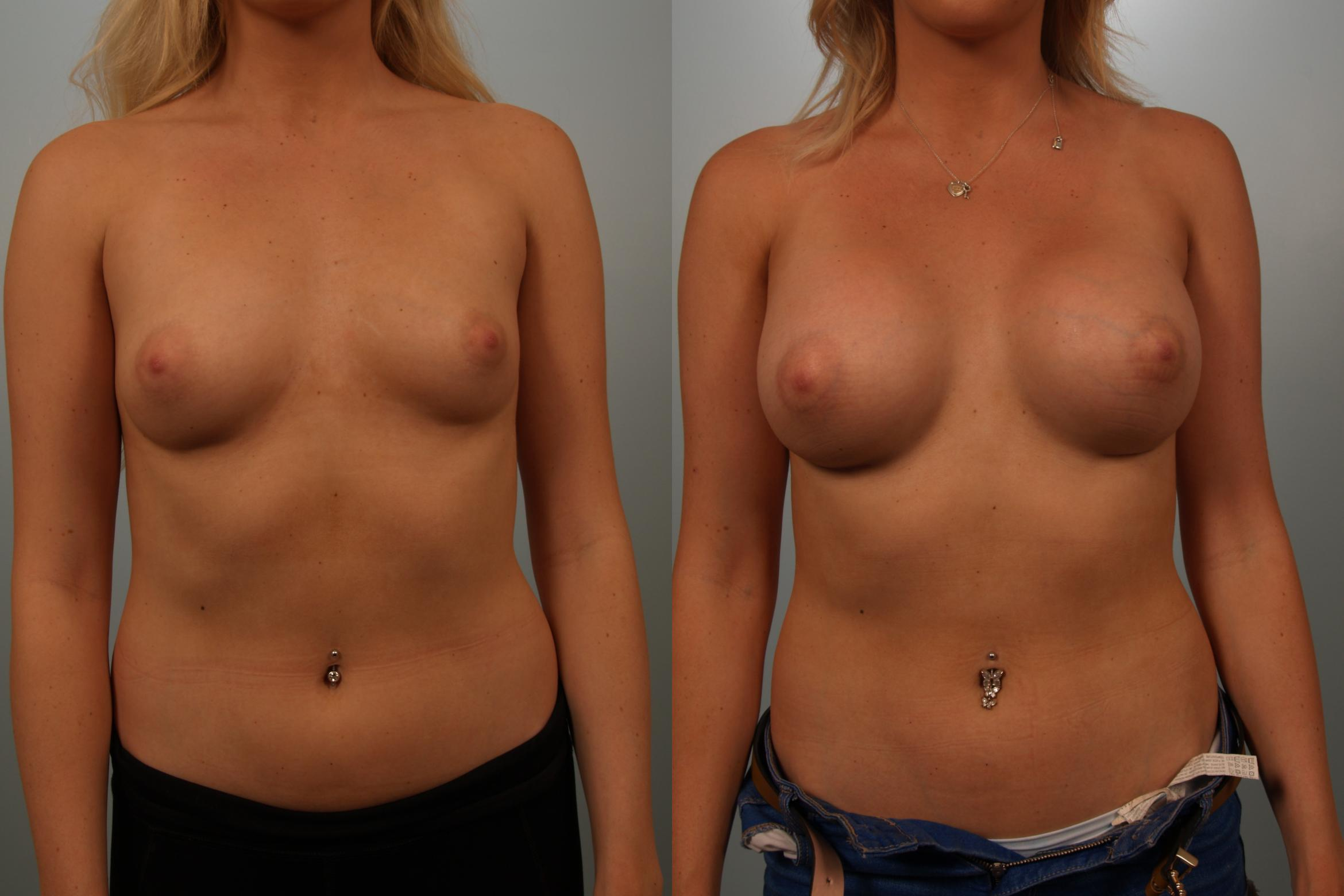 Breast Augmentation Case 151 Before & After View #2 | Gilbert, AZ | Dr. Josh Olson: Advanced Plastic Surgery Institute