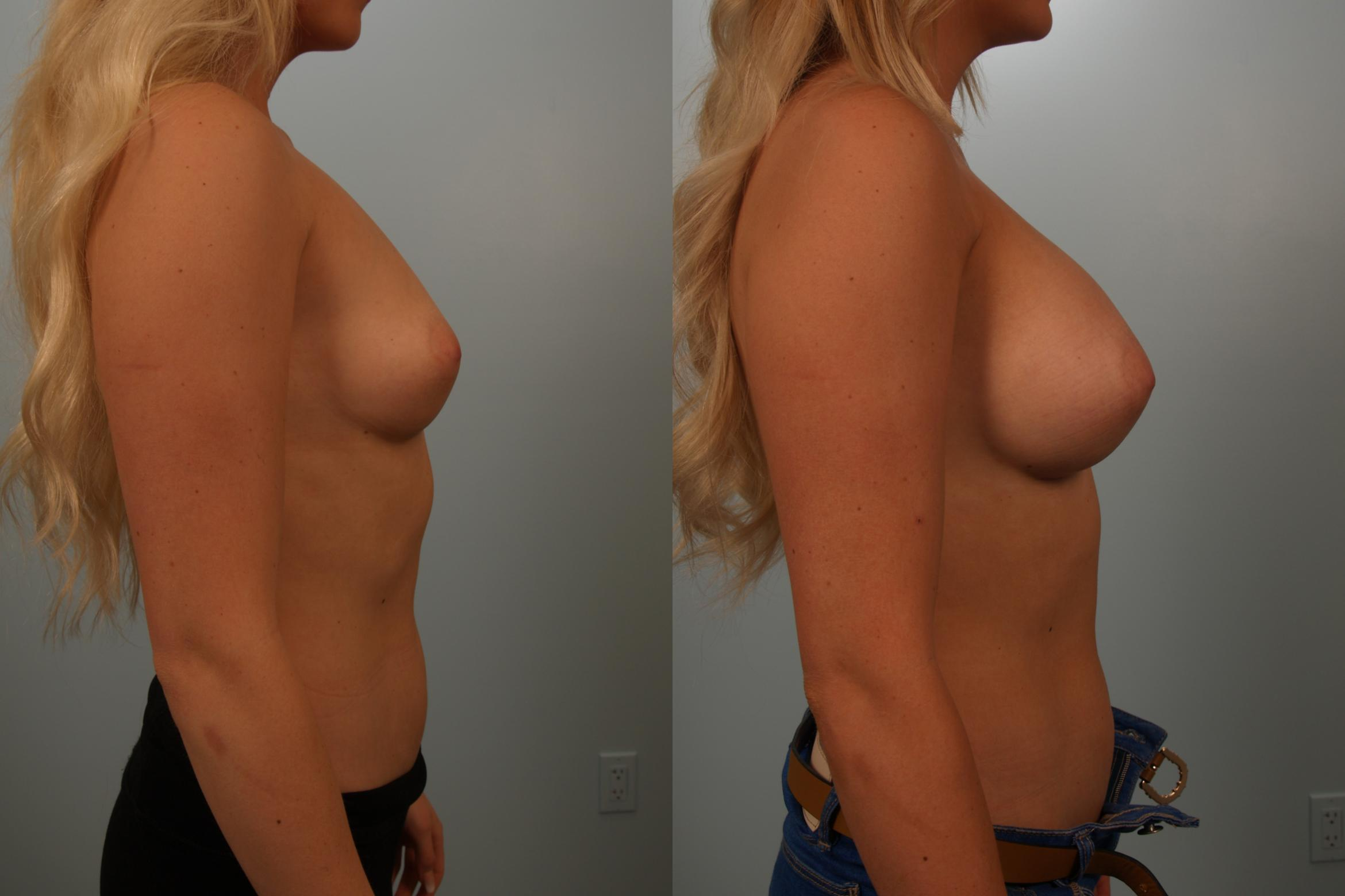 Breast Augmentation Case 151 Before & After View #3 | Gilbert, AZ | Dr. Josh Olson: Advanced Plastic Surgery Institute