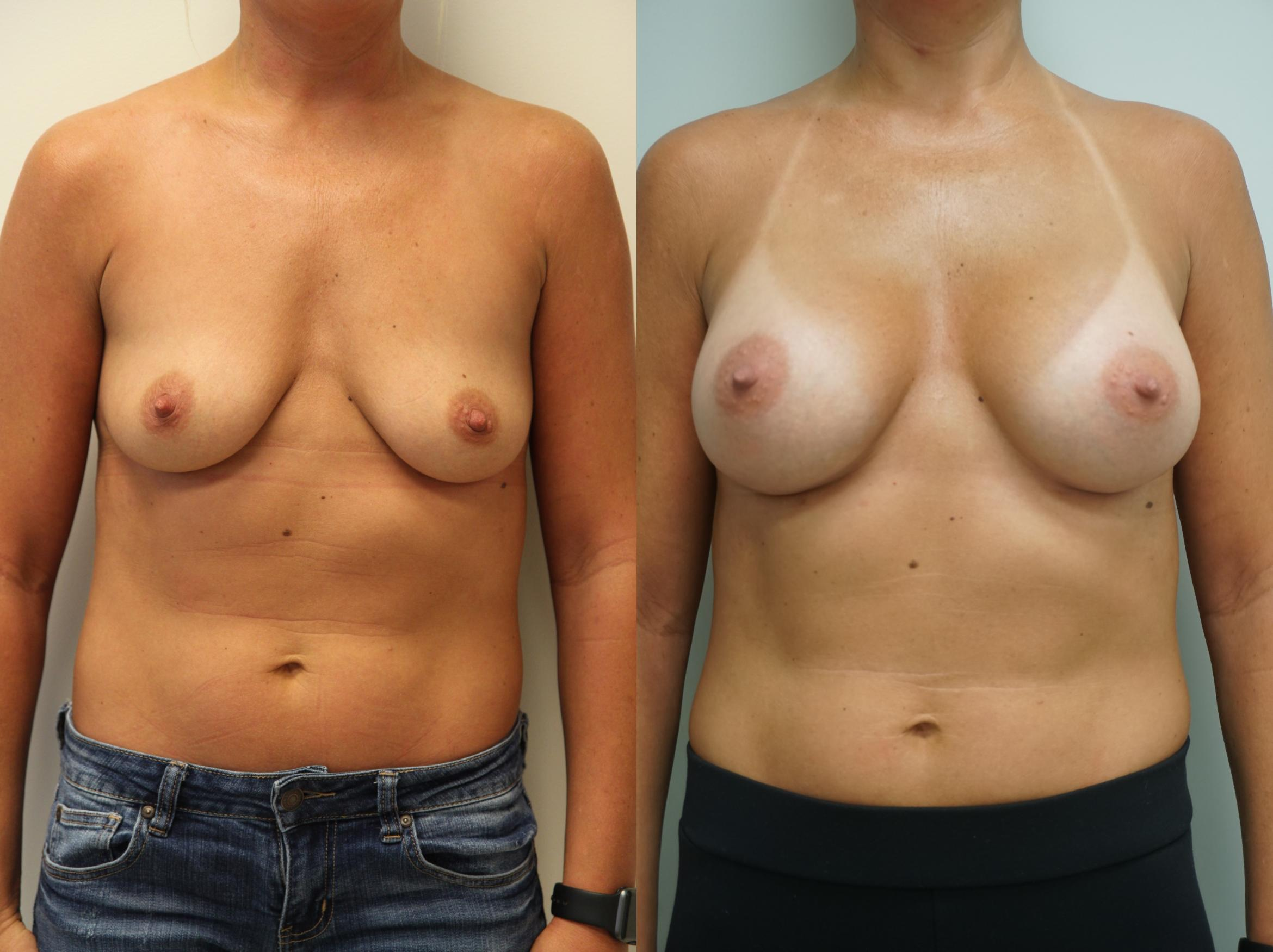 Breast Augmentation Case 162 Before & After View #1 | Gilbert, AZ | Dr. Josh Olson: Advanced Plastic Surgery Institute