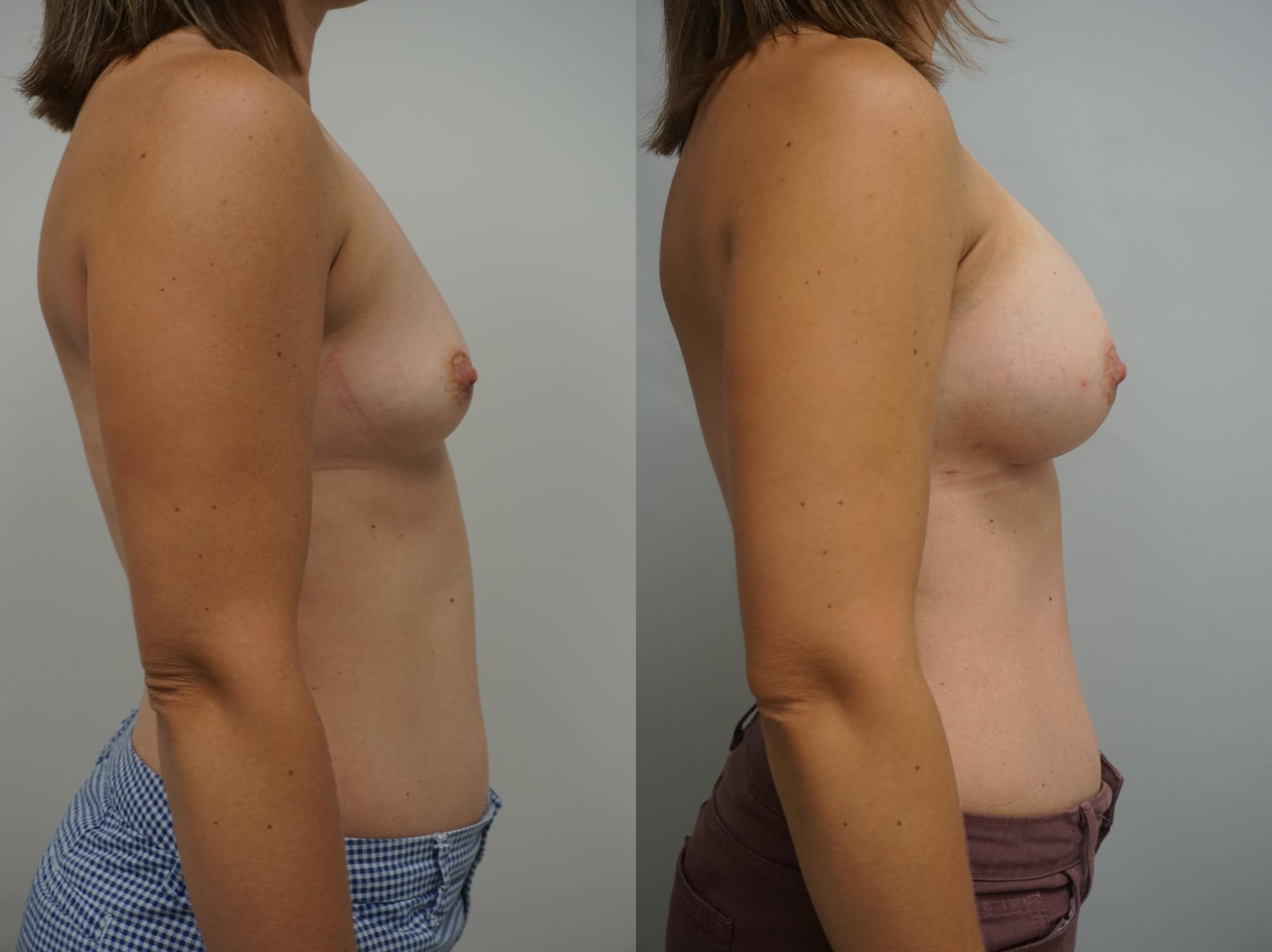 Breast Augmentation Case 178 Before & After View #1 | Gilbert, AZ | Dr. Josh Olson: Advanced Plastic Surgery Institute