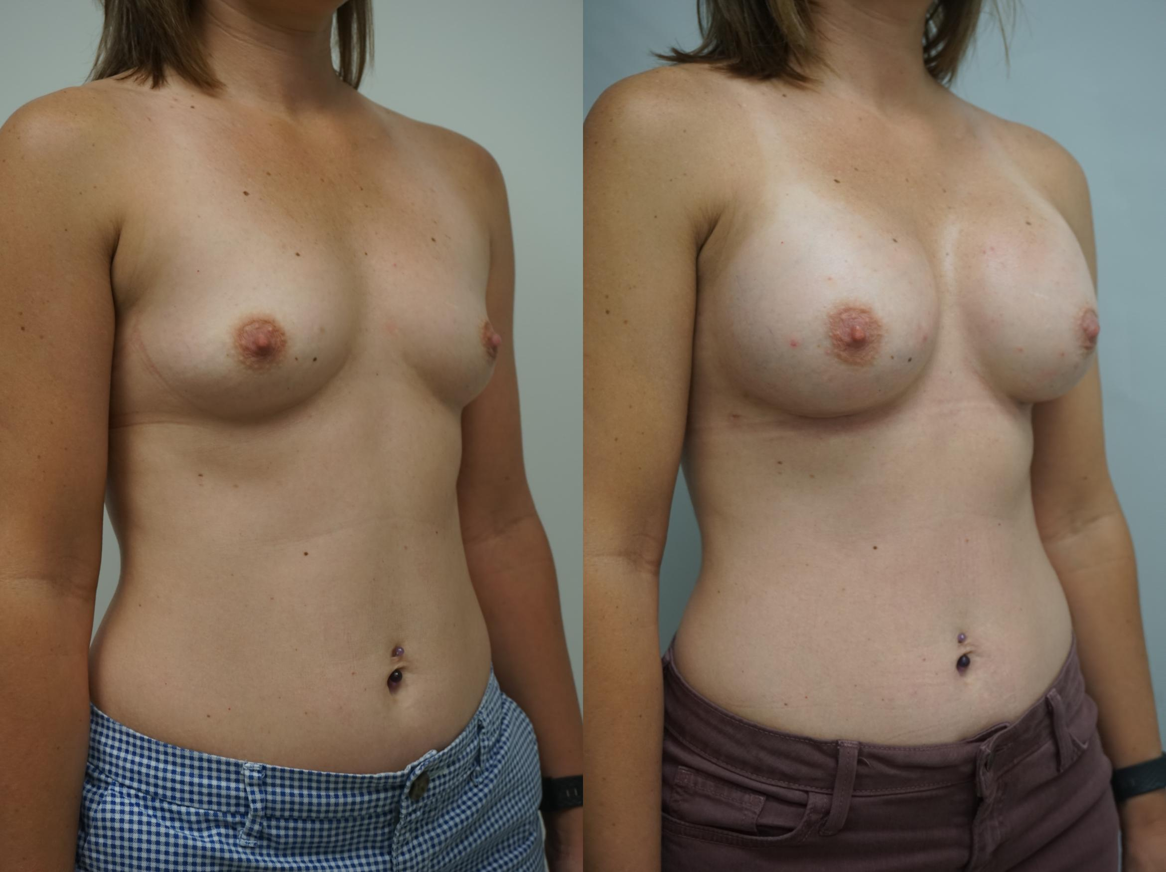 Breast Augmentation Case 178 Before & After View #2 | Gilbert, AZ | Dr. Josh Olson: Advanced Plastic Surgery Institute