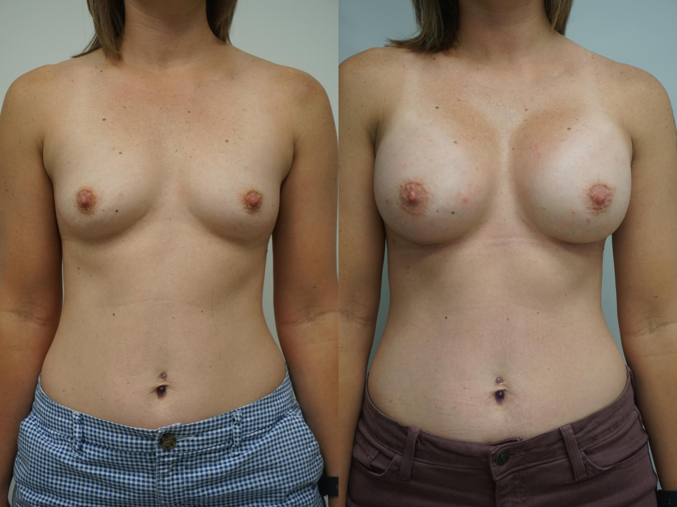 Breast Augmentation Case 178 Before & After View #3 | Gilbert, AZ | Dr. Josh Olson: Advanced Plastic Surgery Institute