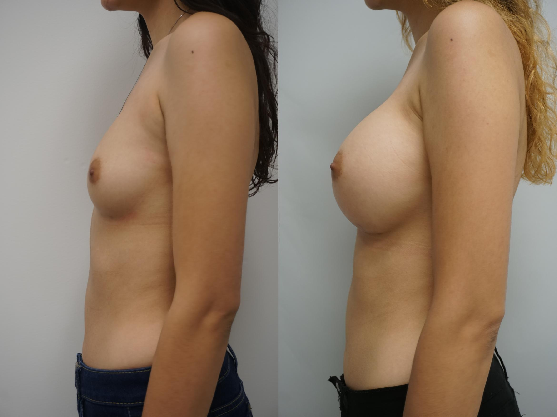Breast Augmentation Case 180 Before & After View #1 | Gilbert, AZ | Dr. Josh Olson: Advanced Plastic Surgery Institute