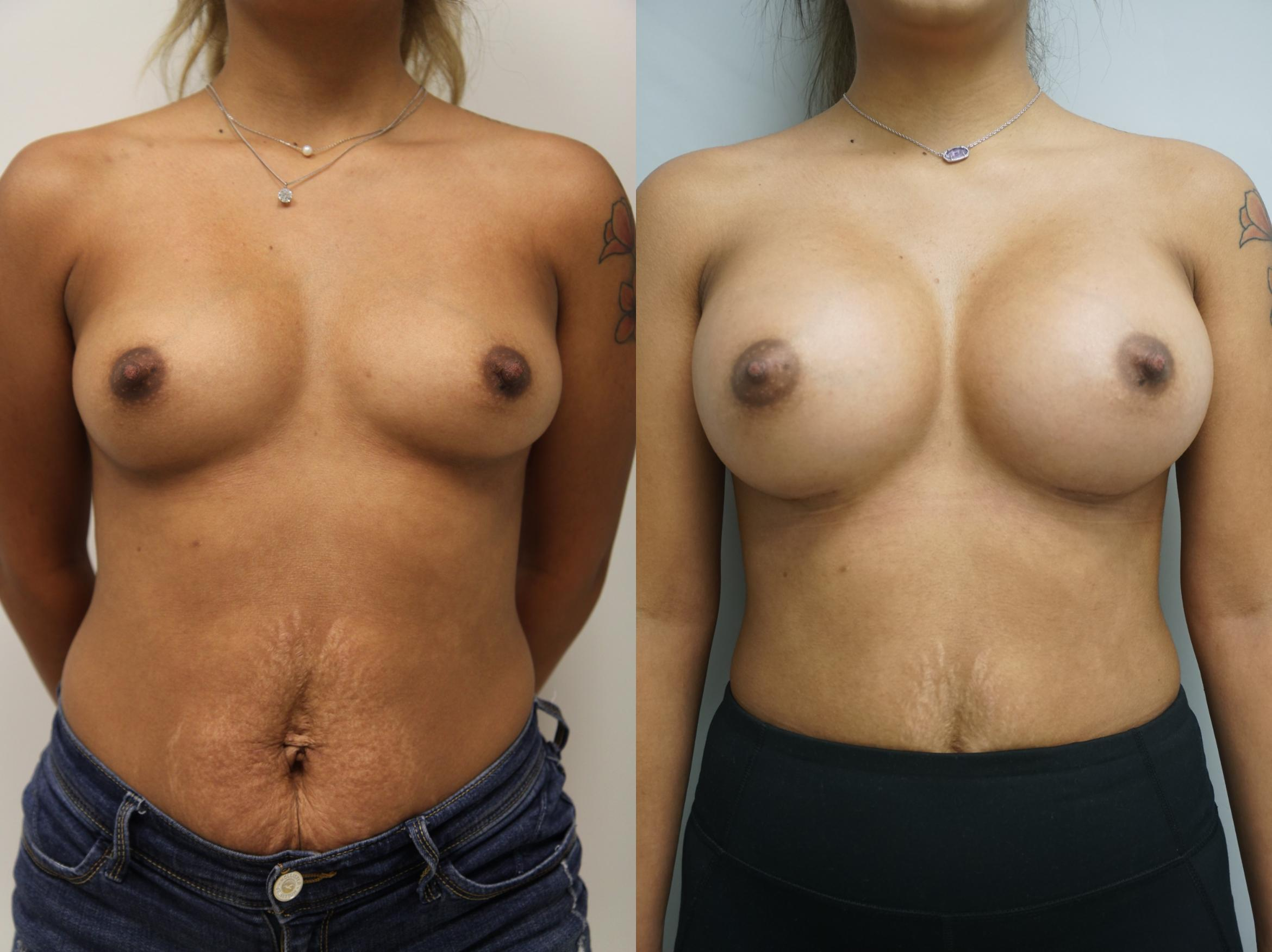 Breast Augmentation Case 203 Before & After View #1 | Gilbert, AZ | Dr. Josh Olson: Advanced Plastic Surgery Institute