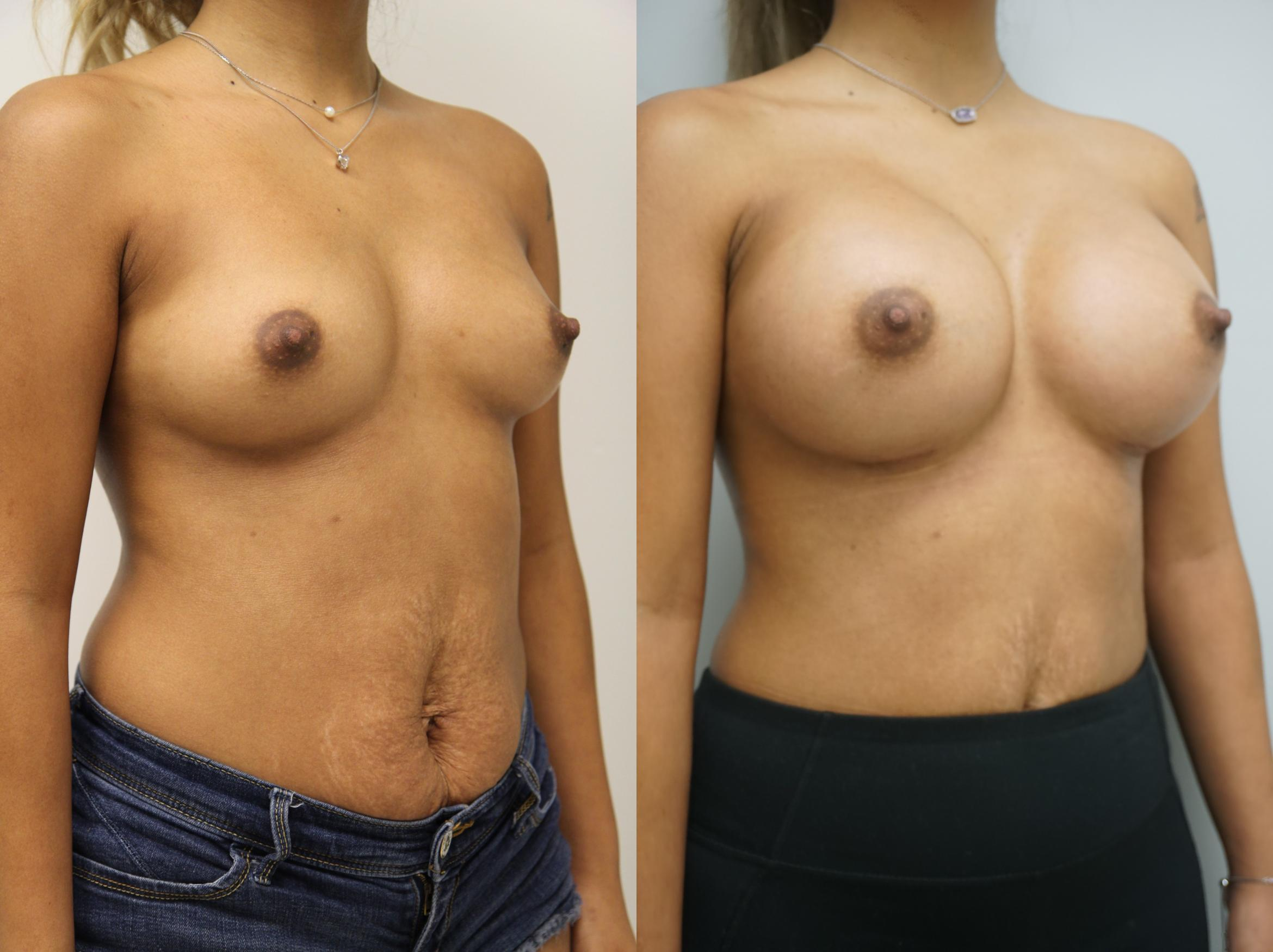 Breast Augmentation Case 203 Before & After View #2 | Gilbert, AZ | Dr. Josh Olson: Advanced Plastic Surgery Institute