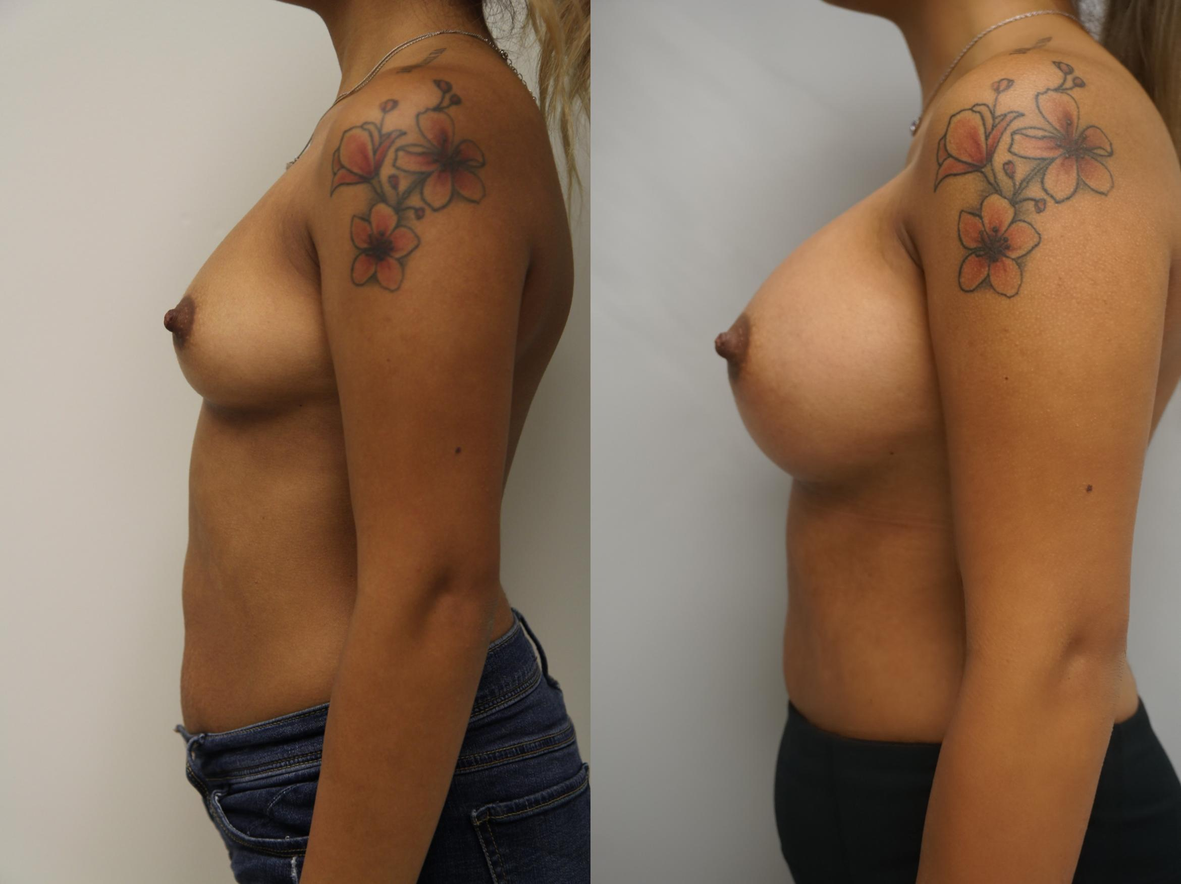 Breast Augmentation Case 203 Before & After View #3 | Gilbert, AZ | Dr. Josh Olson: Advanced Plastic Surgery Institute