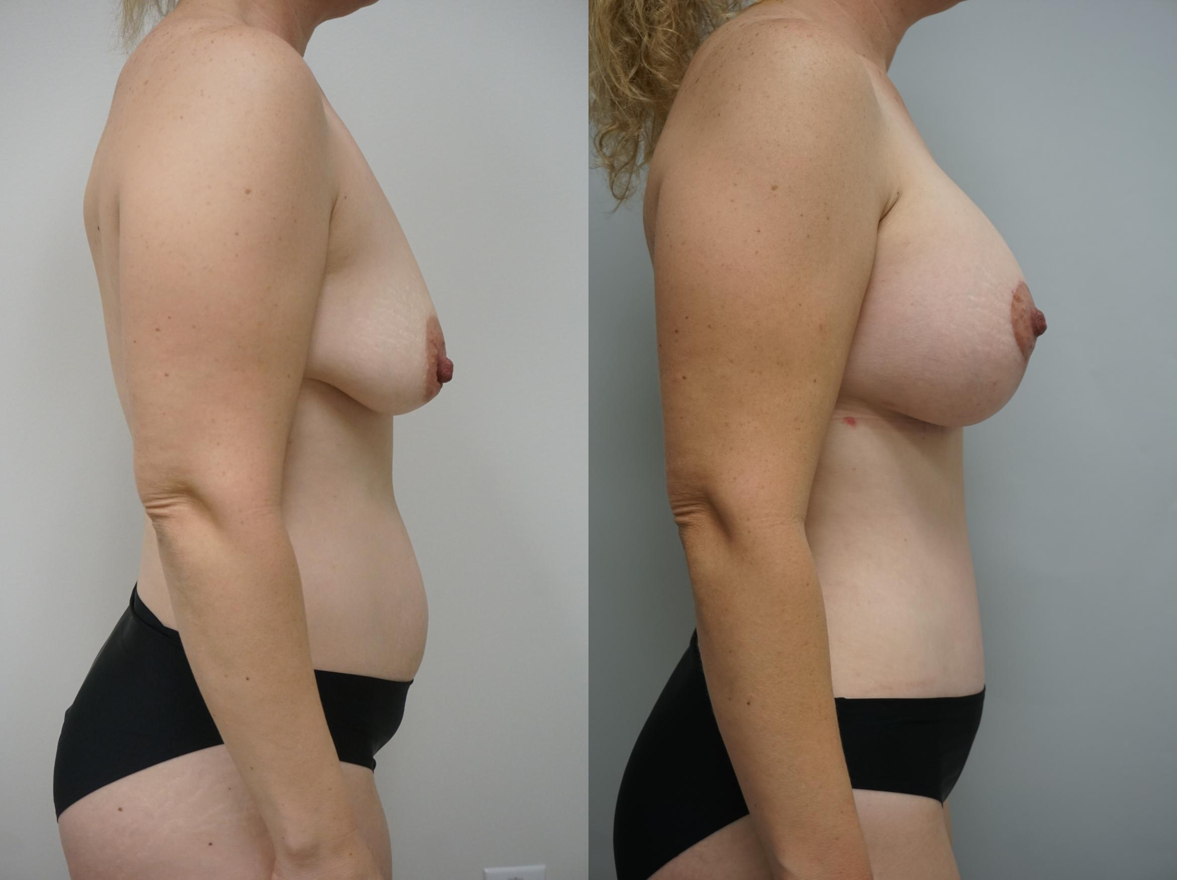 Breast Augmentation Case 210 Before & After View #1 | Gilbert, AZ | Dr. Josh Olson: Advanced Plastic Surgery Institute