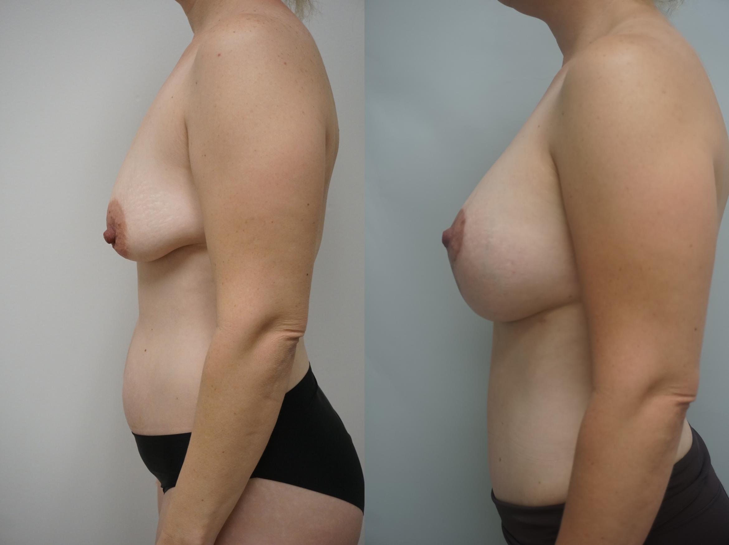 Breast Augmentation Case 210 Before & After View #2 | Gilbert, AZ | Dr. Josh Olson: Advanced Plastic Surgery Institute