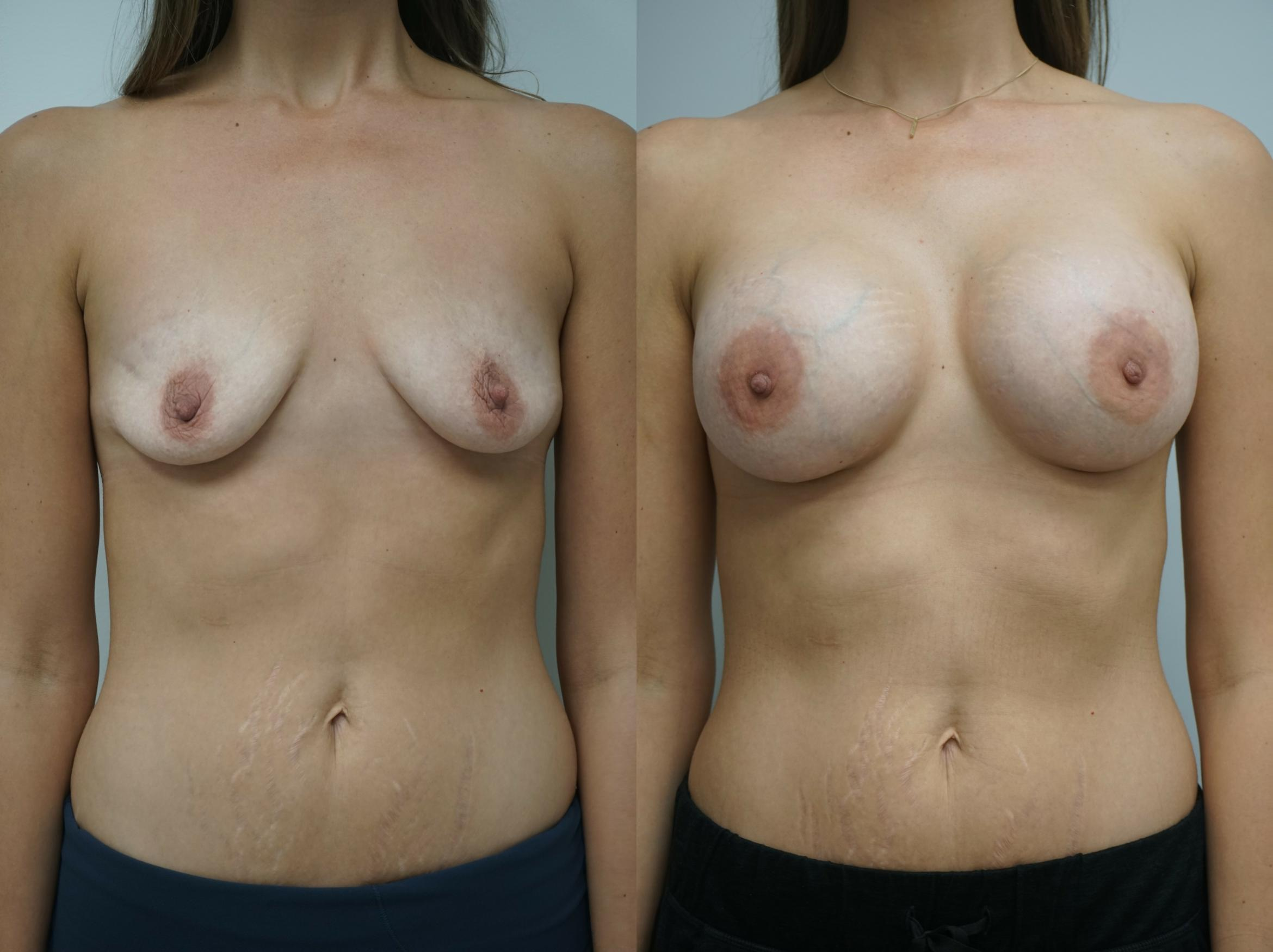 Breast Augmentation Case 211 Before & After View #1 | Gilbert, AZ | Dr. Josh Olson: Advanced Plastic Surgery Institute