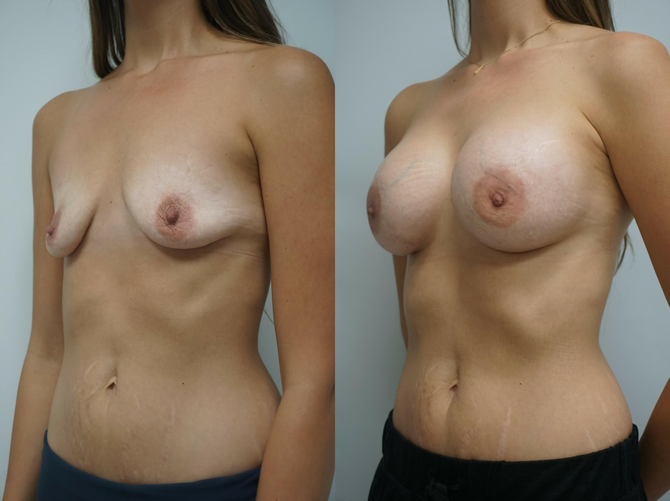 Breast Augmentation Case 211 Before & After View #2 | Gilbert, AZ | Dr. Josh Olson: Advanced Plastic Surgery Institute