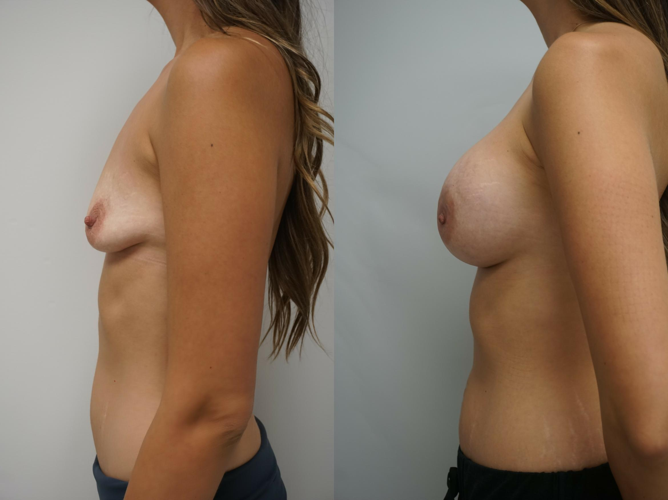 Breast Augmentation Case 211 Before & After View #3 | Gilbert, AZ | Dr. Josh Olson: Advanced Plastic Surgery Institute
