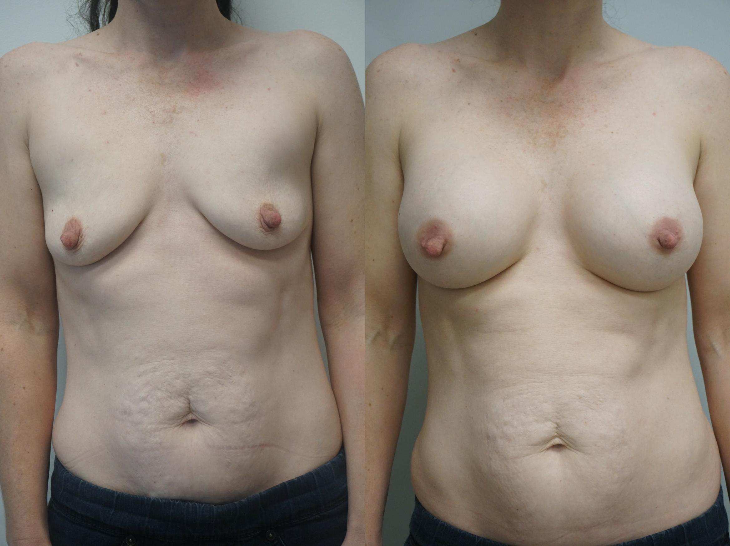 Breast Augmentation Case 244 Before & After View #1 | Gilbert, AZ | Dr. Josh Olson: Advanced Plastic Surgery Institute