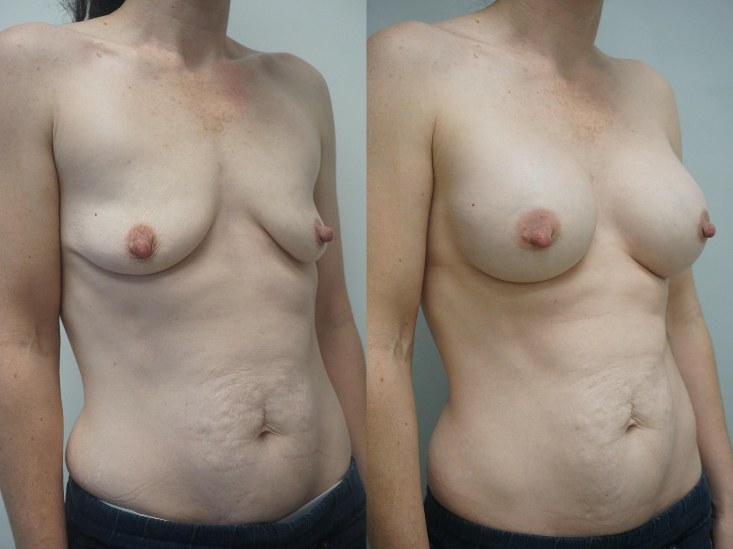 Breast Augmentation Case 244 Before & After View #2 | Gilbert, AZ | Dr. Josh Olson: Advanced Plastic Surgery Institute