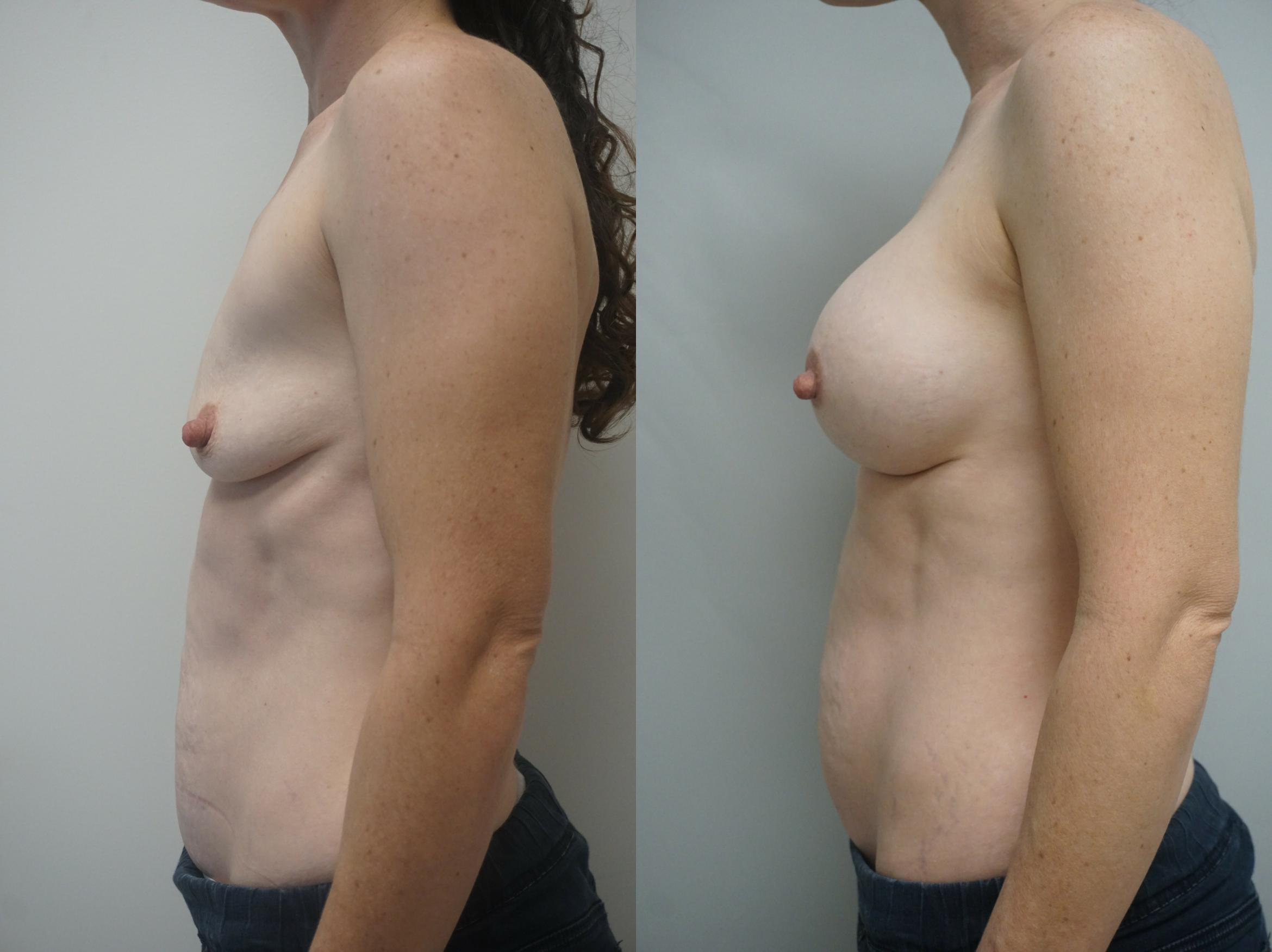 Breast Augmentation Case 244 Before & After View #3 | Gilbert, AZ | Dr. Josh Olson: Advanced Plastic Surgery Institute