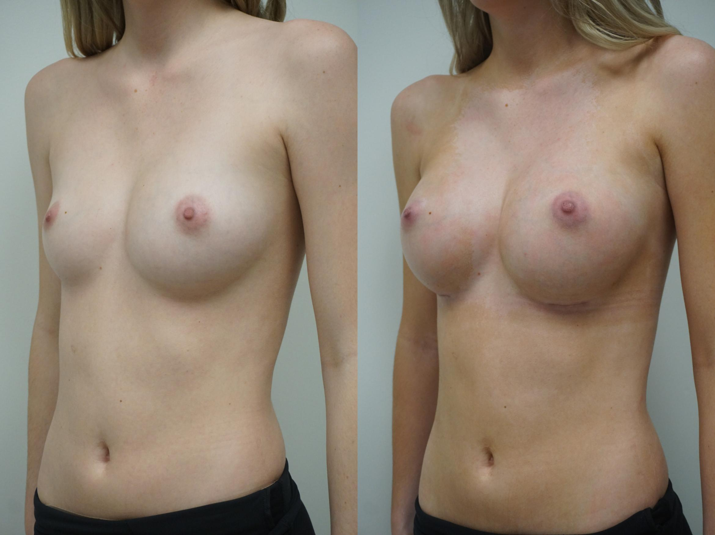 Breast Augmentation Case 252 Before & After View #1 | Gilbert, AZ | Dr. Josh Olson: Advanced Plastic Surgery Institute