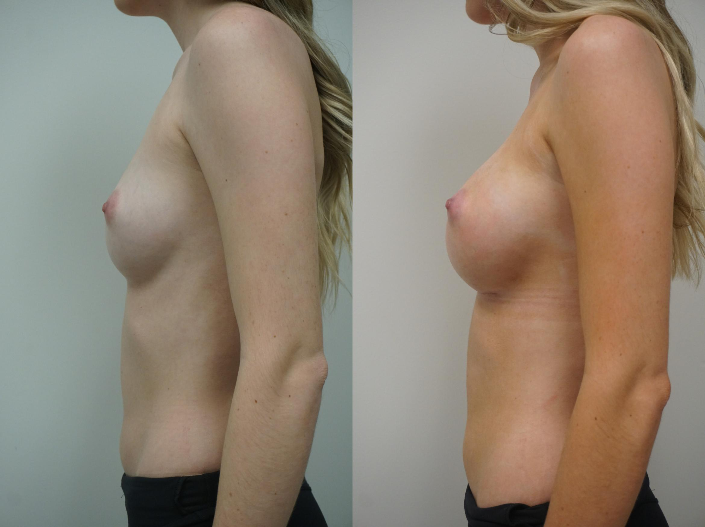 Breast Augmentation Case 252 Before & After View #2 | Gilbert, AZ | Dr. Josh Olson: Advanced Plastic Surgery Institute
