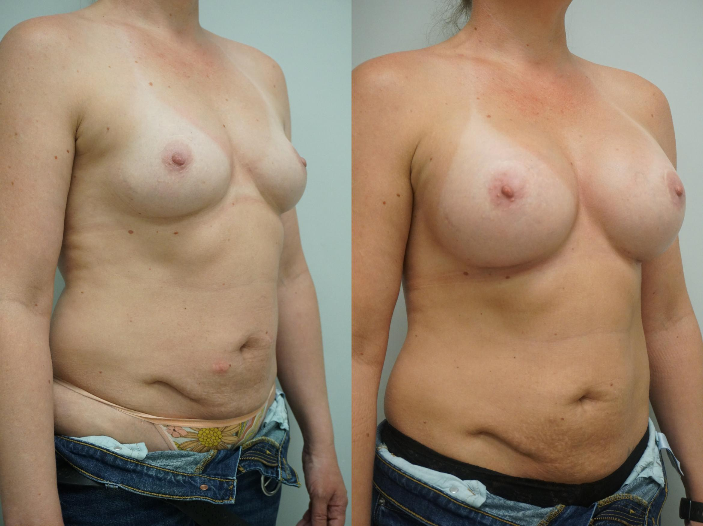 Breast Augmentation Case 264 Before & After View #1 | Gilbert, AZ | Dr. Josh Olson: Advanced Plastic Surgery Institute