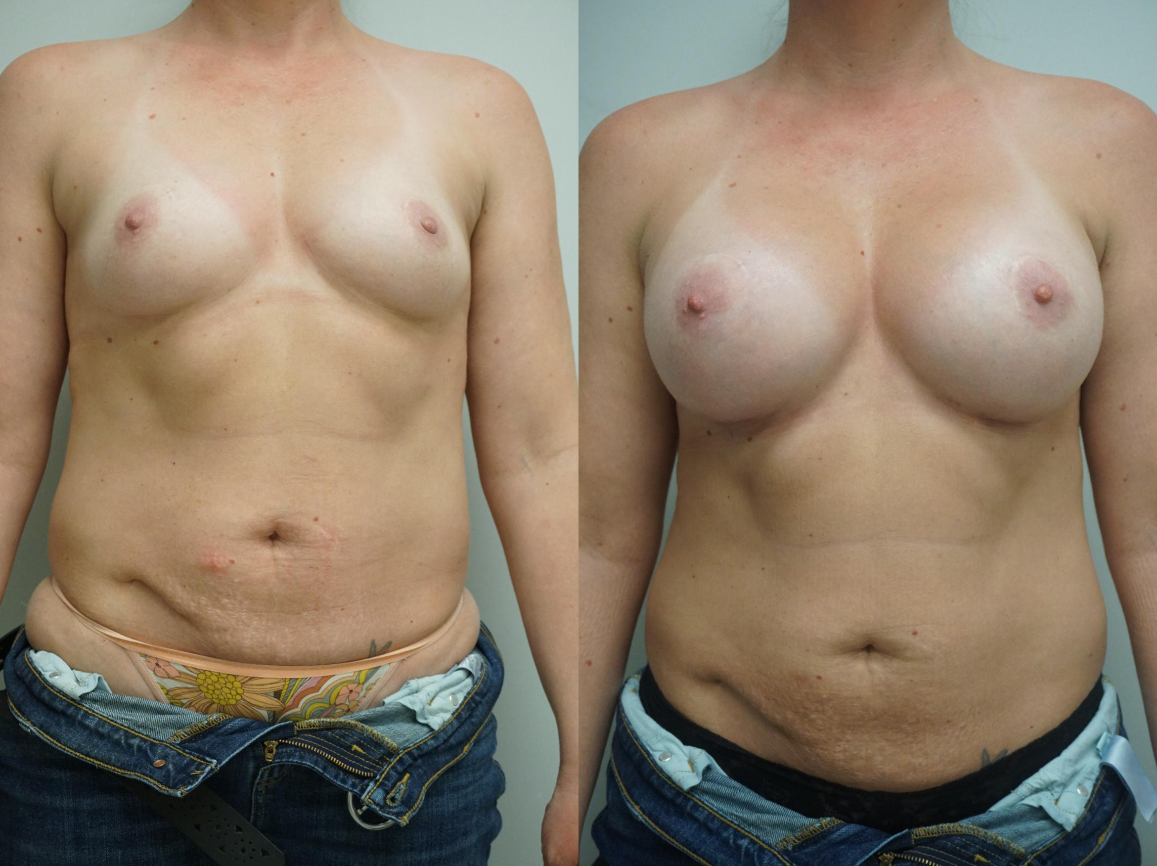 Breast Augmentation Case 264 Before & After View #2 | Gilbert, AZ | Dr. Josh Olson: Advanced Plastic Surgery Institute