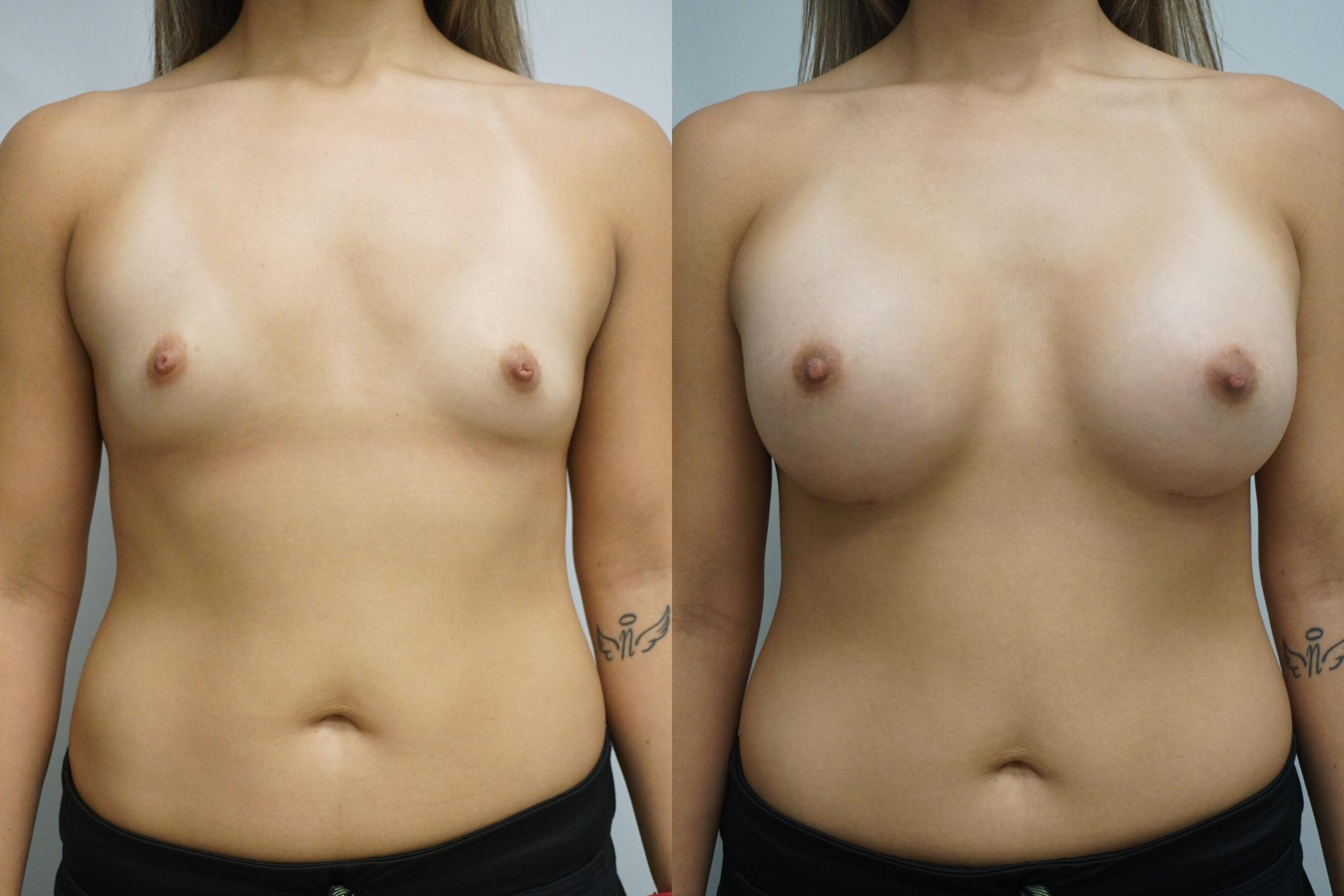 Breast Augmentation Case 288 Before & After Front | Gilbert, AZ | Dr. Josh Olson: Advanced Plastic Surgery Institute