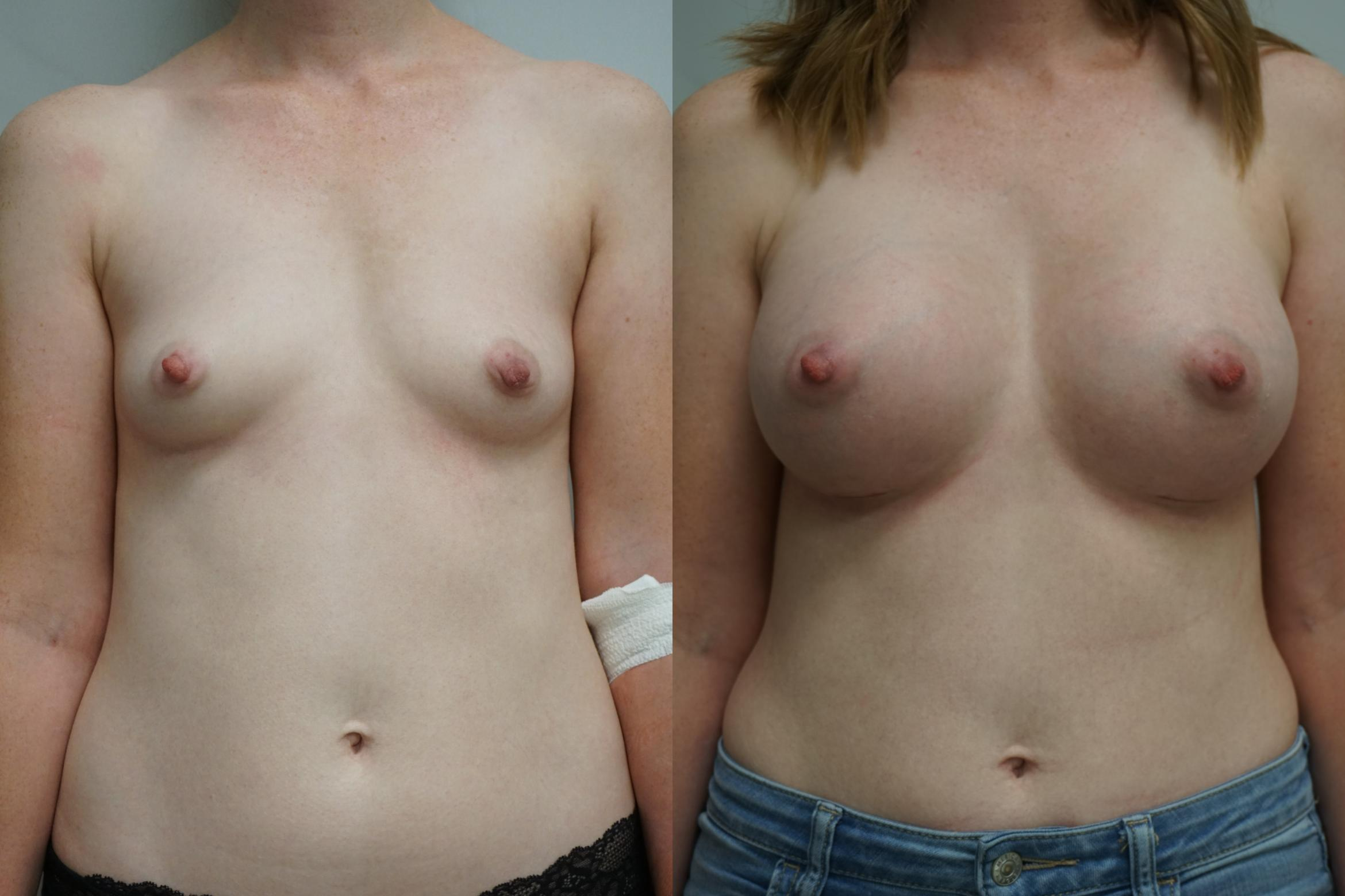 Breast Augmentation Case 298 Before & After Front | Gilbert, AZ | Dr. Josh Olson: Advanced Plastic Surgery Institute