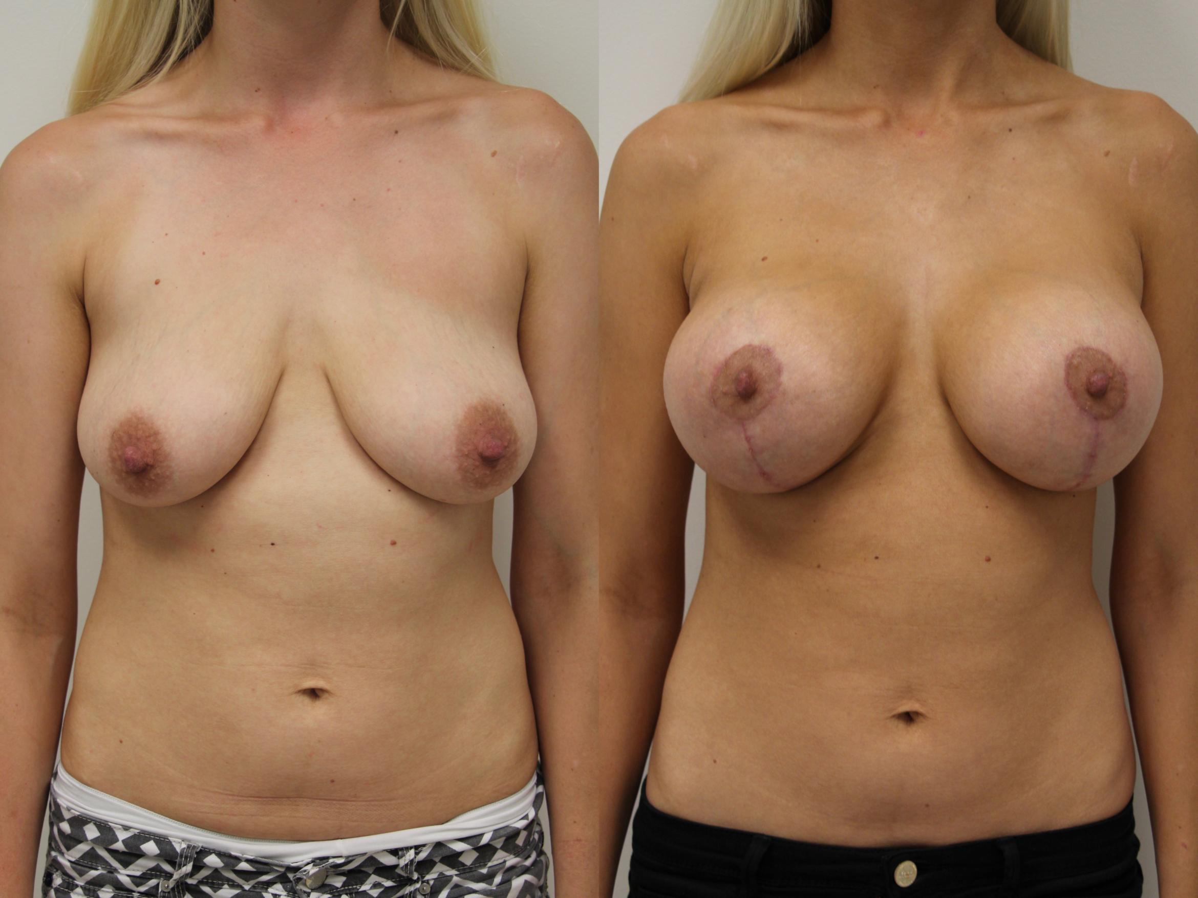 Breast Augmentation Case 57 Before & After View #1 | Gilbert, AZ | Dr. Josh Olson: Advanced Plastic Surgery Institute
