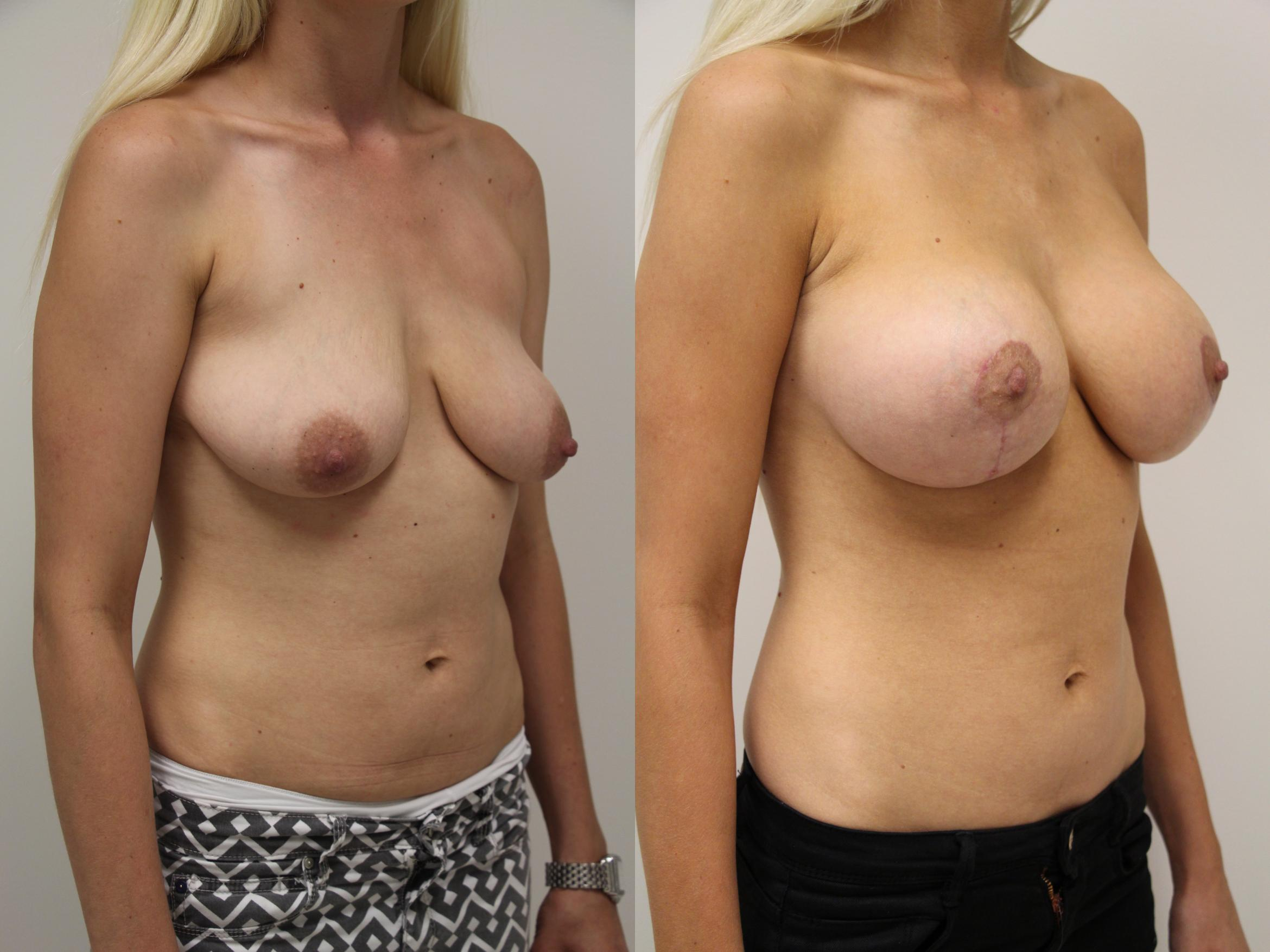 Breast Augmentation Case 57 Before & After View #2 | Gilbert, AZ | Dr. Josh Olson: Advanced Plastic Surgery Institute