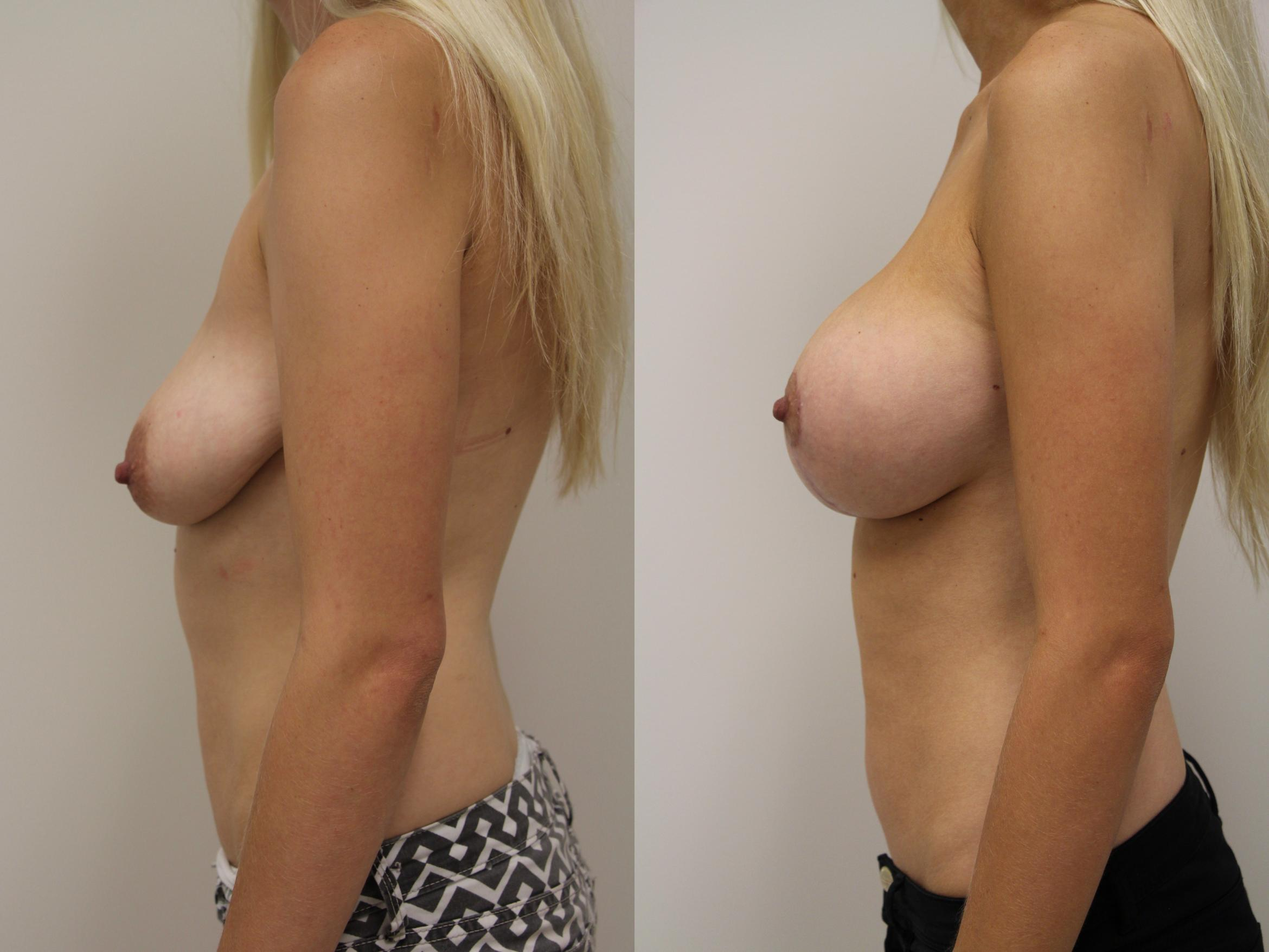 Breast Augmentation Case 57 Before & After View #3 | Gilbert, AZ | Dr. Josh Olson: Advanced Plastic Surgery Institute