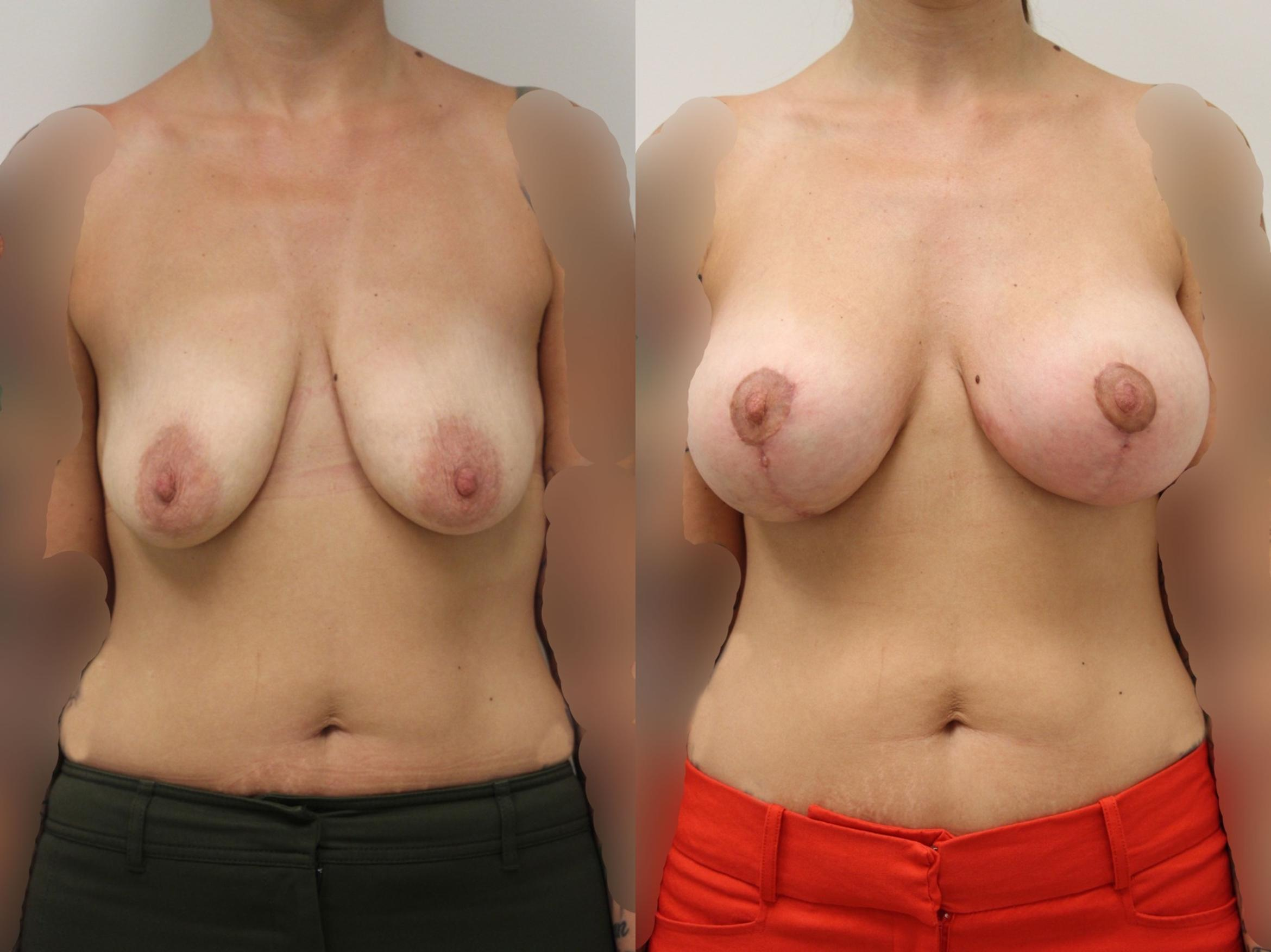 Breast Augmentation Case 8 Before & After View #1 | Gilbert, AZ | Dr. Josh Olson: Advanced Plastic Surgery Institute