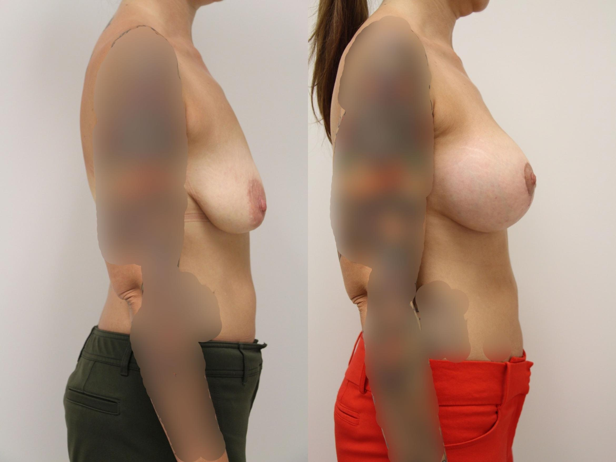 Breast Augmentation Case 8 Before & After View #2 | Gilbert, AZ | Dr. Josh Olson: Advanced Plastic Surgery Institute