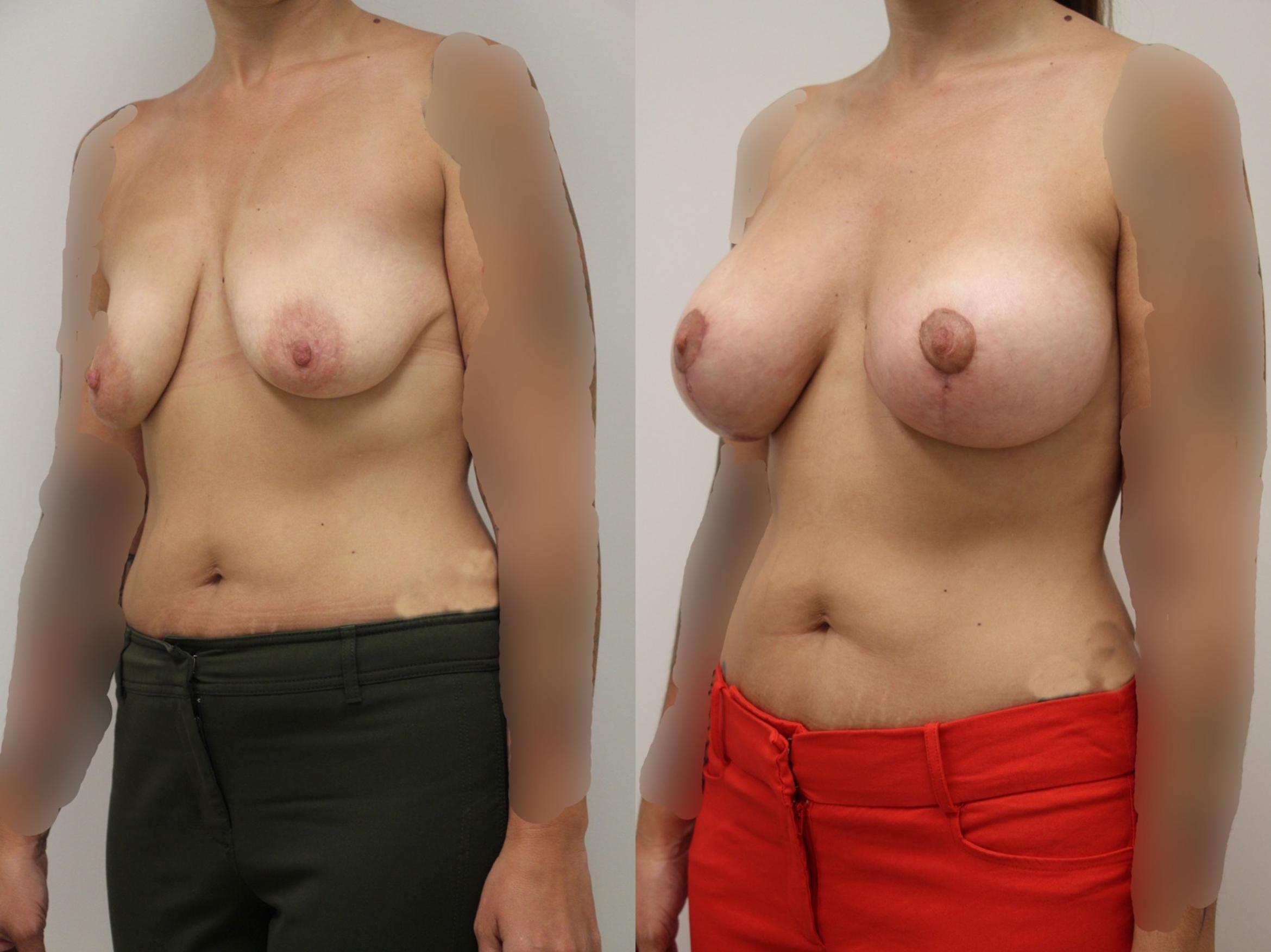 Breast Augmentation Case 8 Before & After View #3 | Gilbert, AZ | Dr. Josh Olson: Advanced Plastic Surgery Institute