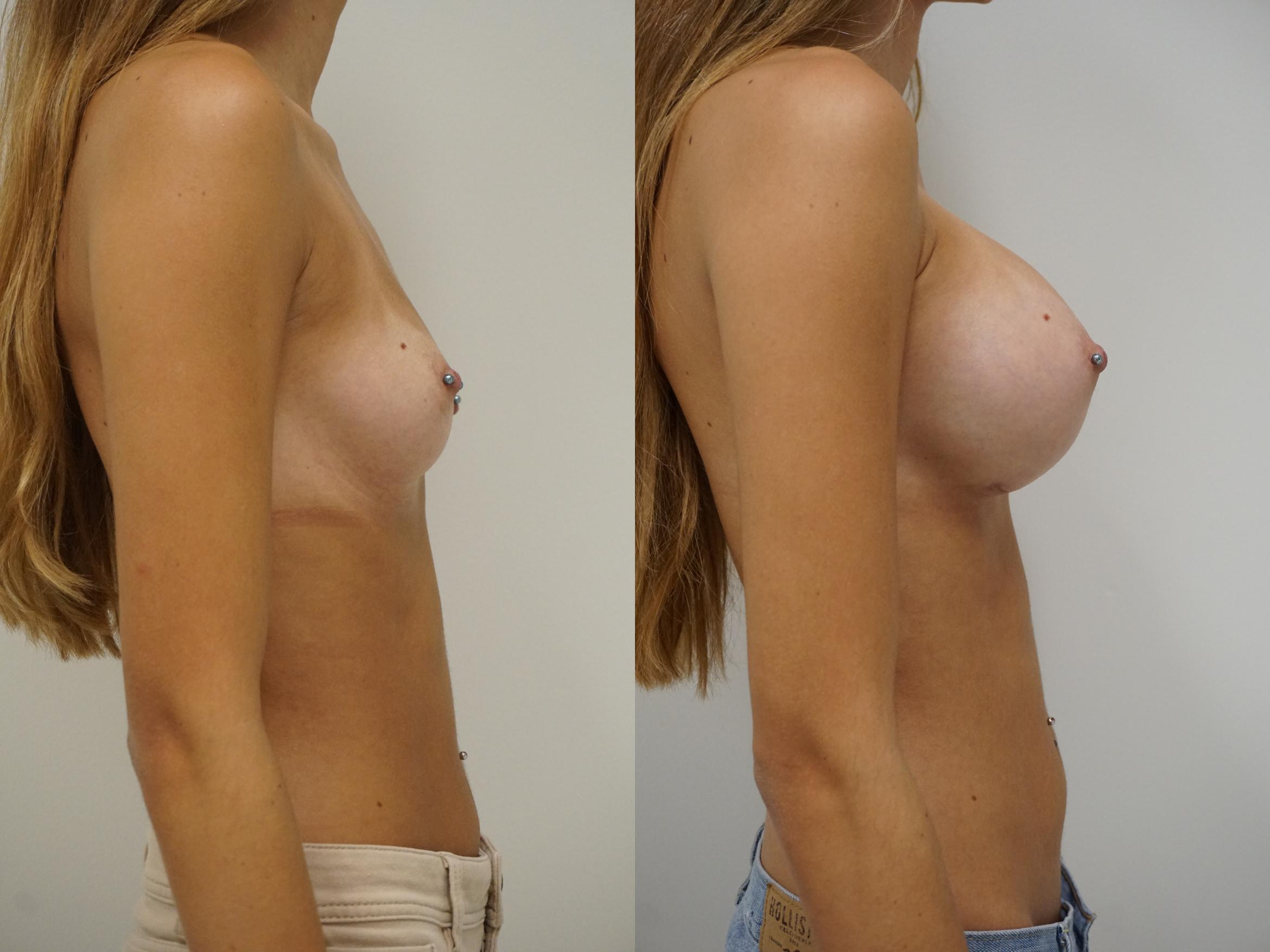 Breast Augmentation Case 89 Before & After View #3 | Gilbert, AZ | Dr. Josh Olson: Advanced Plastic Surgery Institute