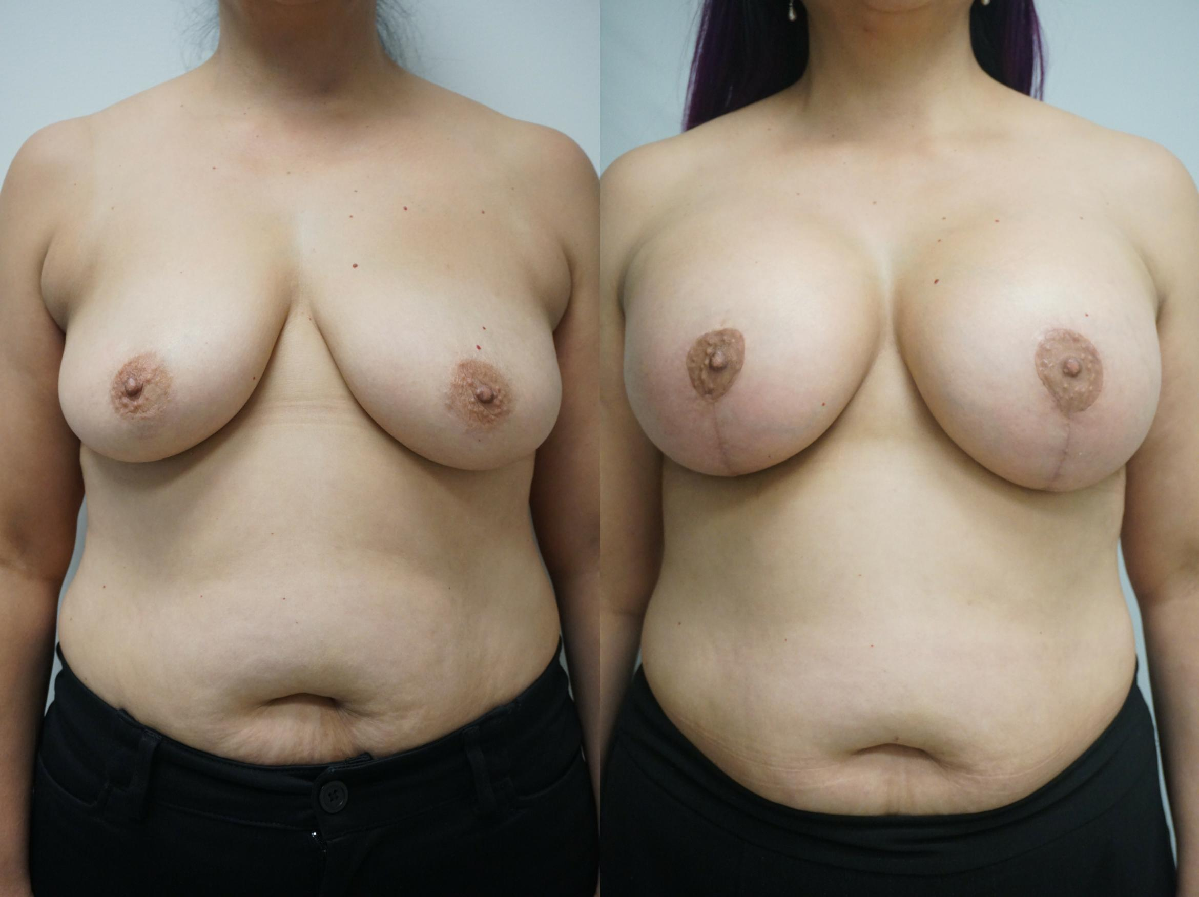 Breast Lift Case 236 Before & After View #1 | Gilbert, AZ | Dr. Josh Olson: Advanced Plastic Surgery Institute