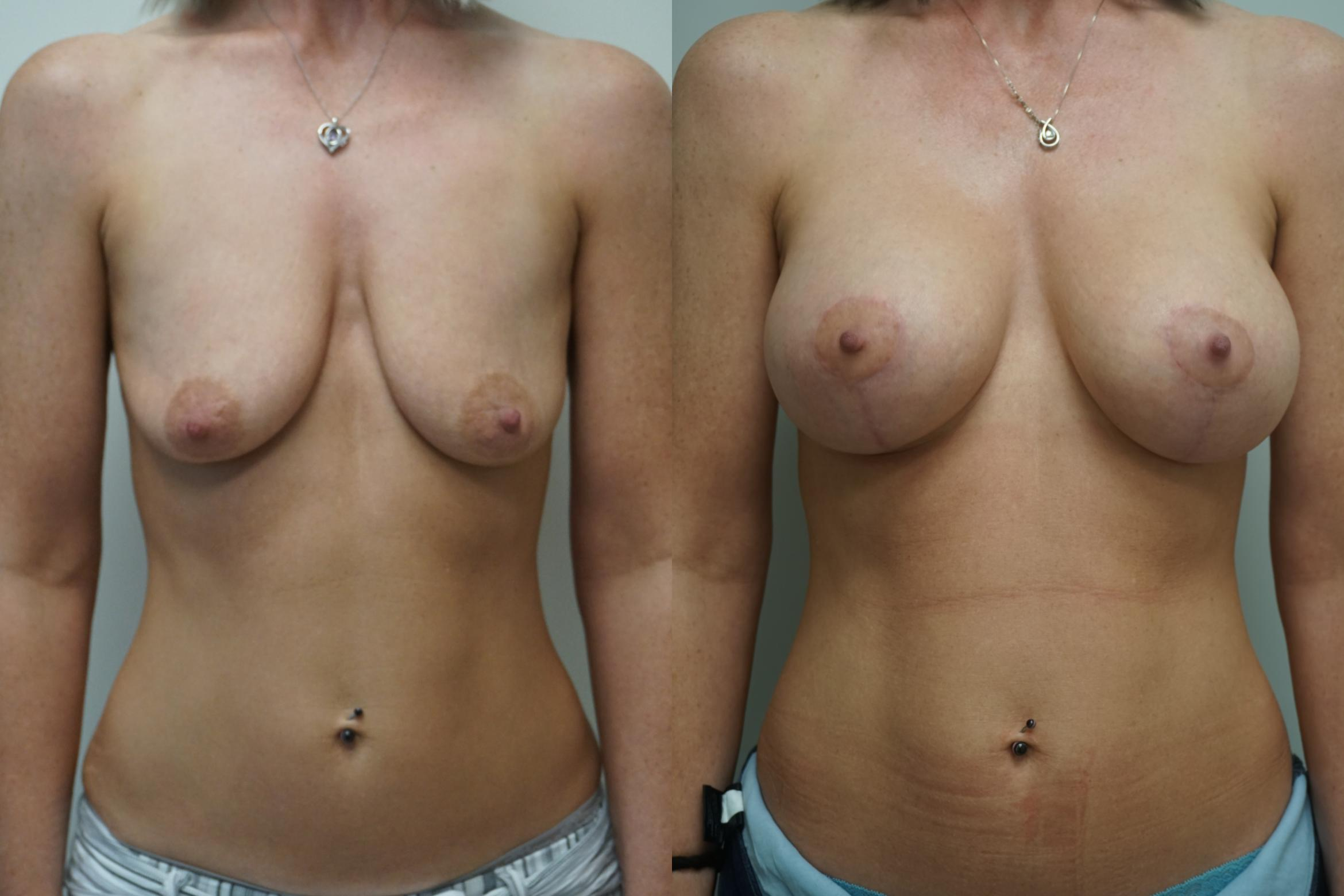 Breast Augmentation Case 289 Before & After Front | Gilbert, AZ | Dr. Josh Olson: Advanced Plastic Surgery Institute