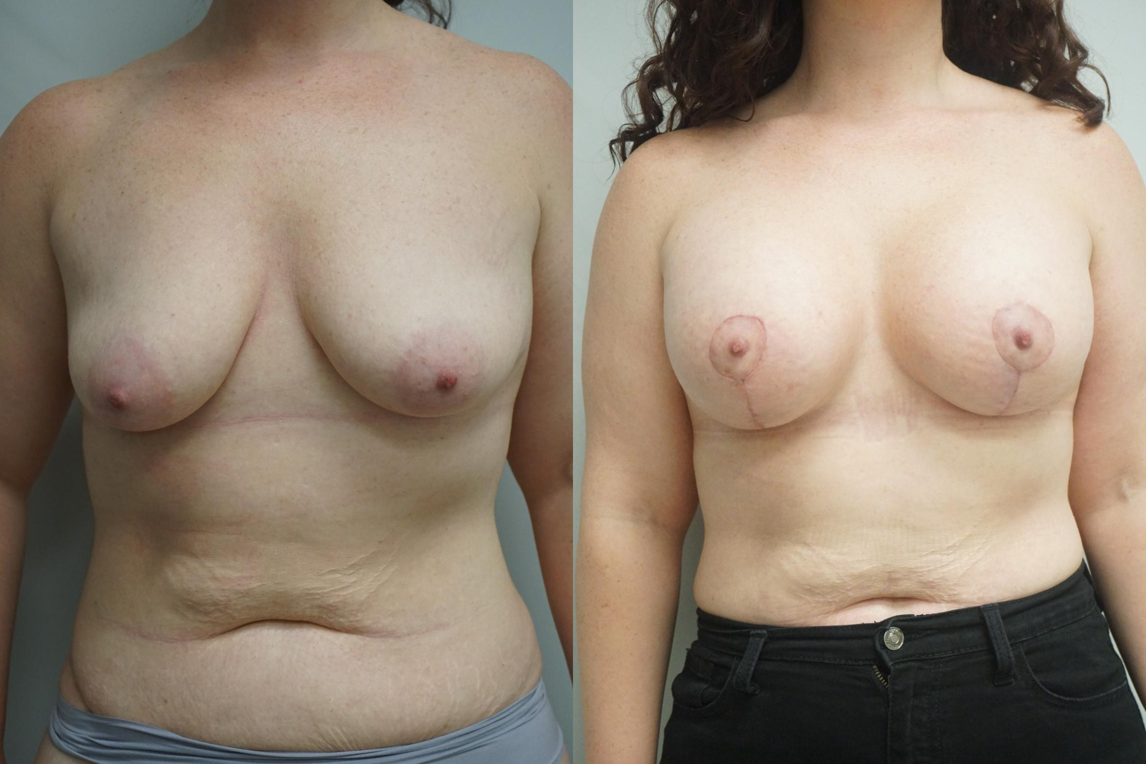 Breast Lift Case 291 Before & After Front | Gilbert, AZ | Dr. Josh Olson: Advanced Plastic Surgery Institute