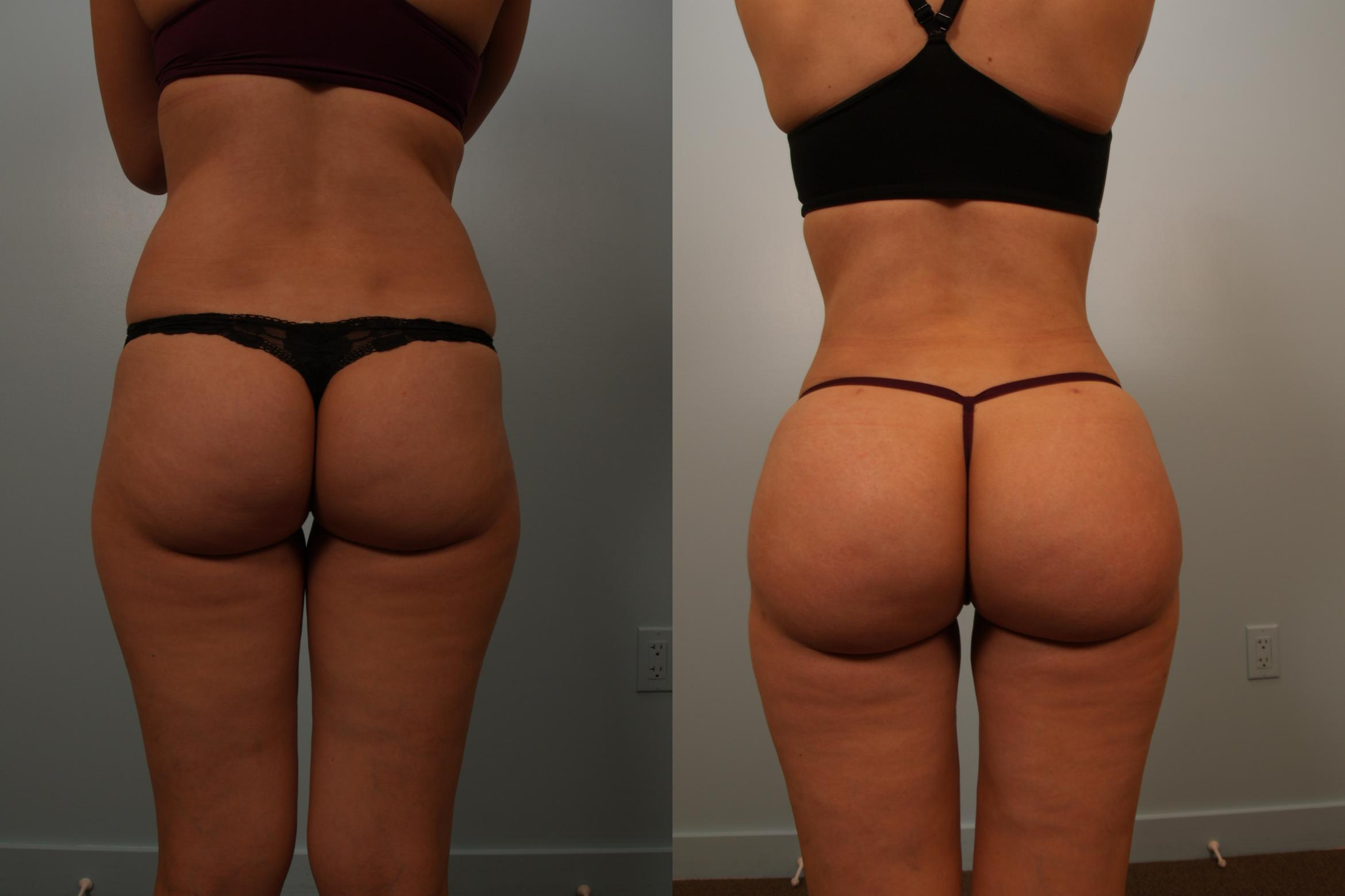 Brazilian Buttock Lift Case 131 Before & After View #1 | Gilbert, AZ | Dr. Josh Olson: Advanced Plastic Surgery Institute