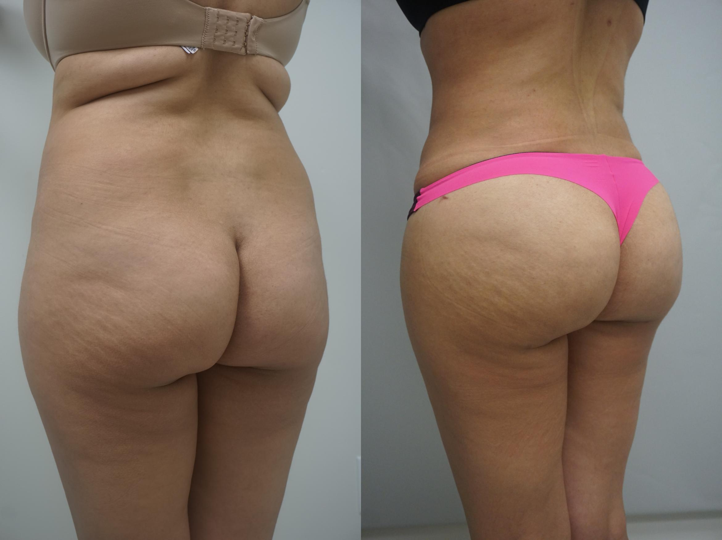 Brazilian Buttock Lift Case 263 Before & After View #1 | Gilbert, AZ | Dr. Josh Olson: Advanced Plastic Surgery Institute
