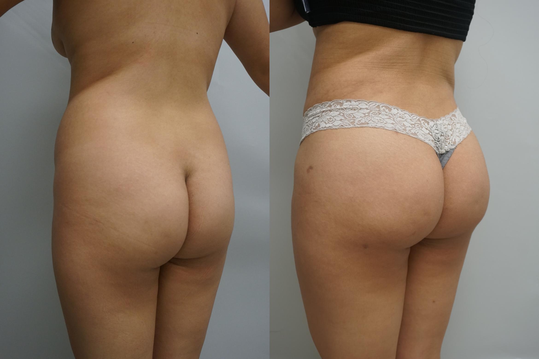 Liposuction For Gilbert Chandler Az Advanced Plastic Surgery Institute