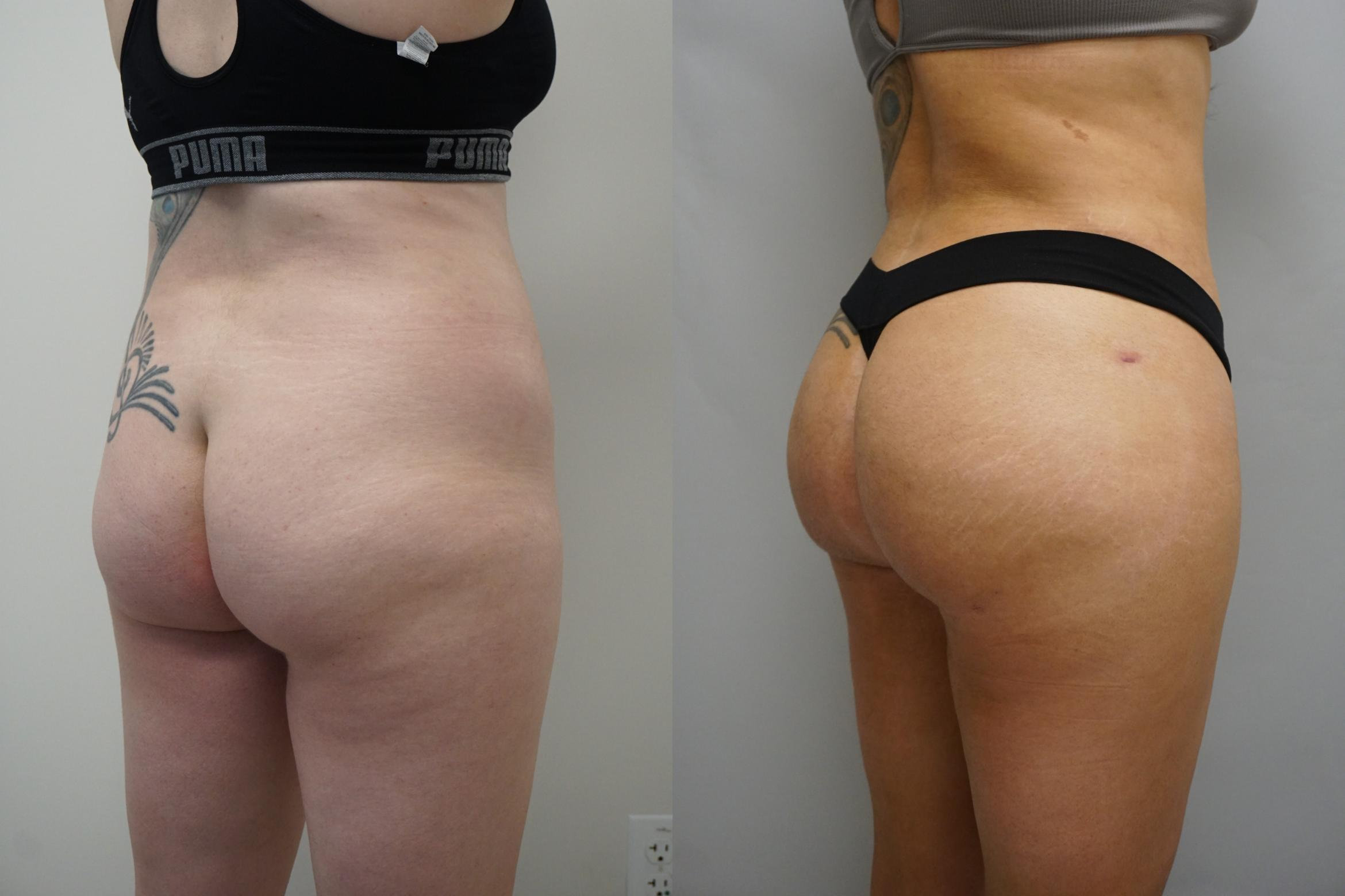 Buttock Augmentation Case 294 Before & After Right Side | Gilbert, AZ | Dr. Josh Olson: Advanced Plastic Surgery Institute